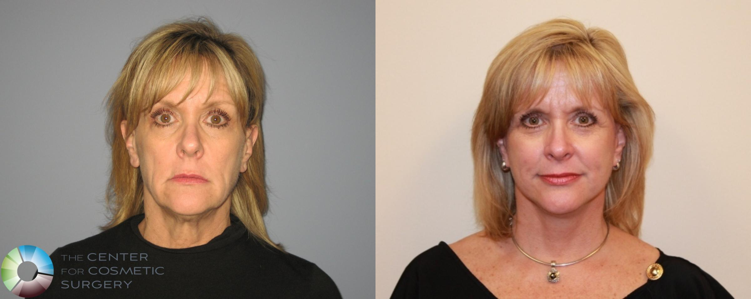 Mini Facelift Case 472 Before & After View #1 | Golden, CO | The Center for Cosmetic Surgery