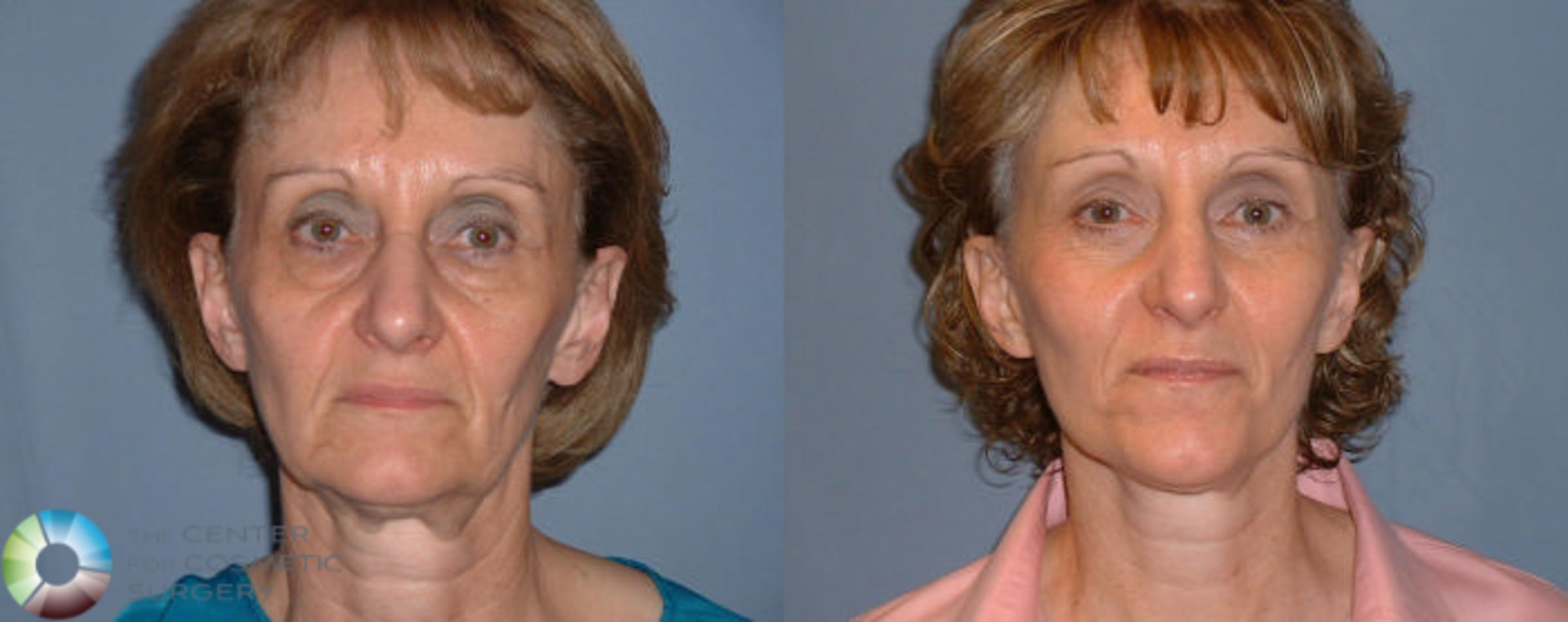 Mini Facelift Case 55 Before & After View #1 | Golden, CO | The Center for Cosmetic Surgery