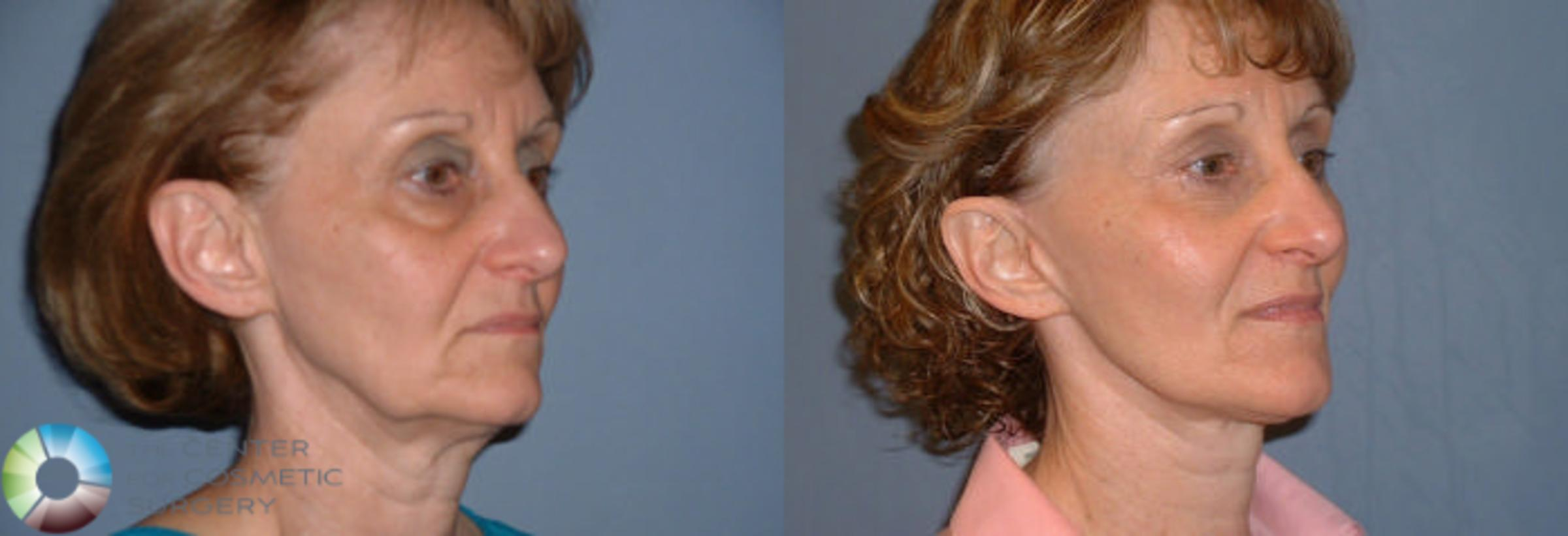 Mini Facelift Case 55 Before & After View #2 | Golden, CO | The Center for Cosmetic Surgery