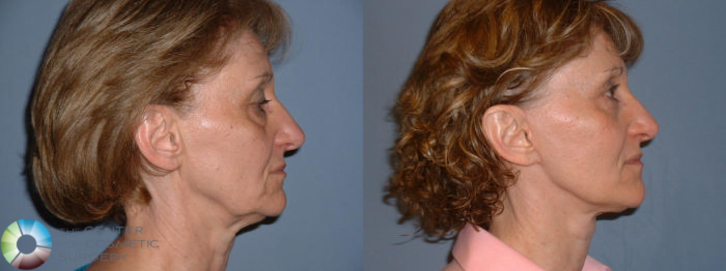 Mini Facelift Case 55 Before & After View #3 | Golden, CO | The Center for Cosmetic Surgery