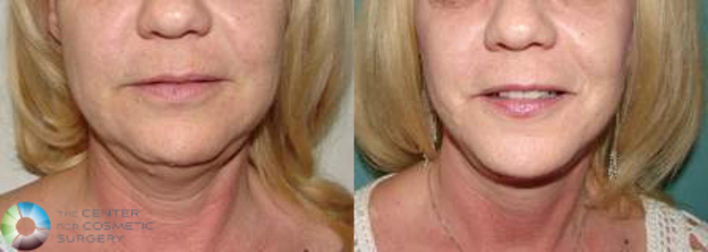 Neck Lift Case 618 Before & After View #1 | Golden, CO | The Center for Cosmetic Surgery
