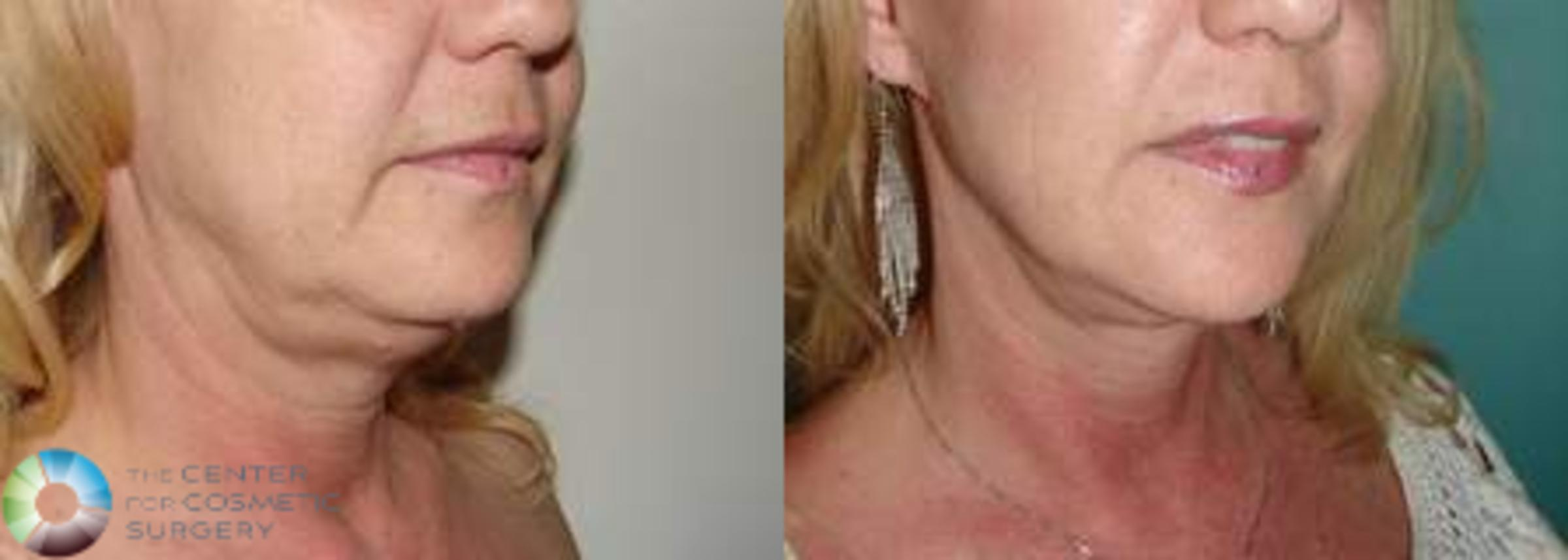 Mini Facelift Case 618 Before & After View #2 | Golden, CO | The Center for Cosmetic Surgery