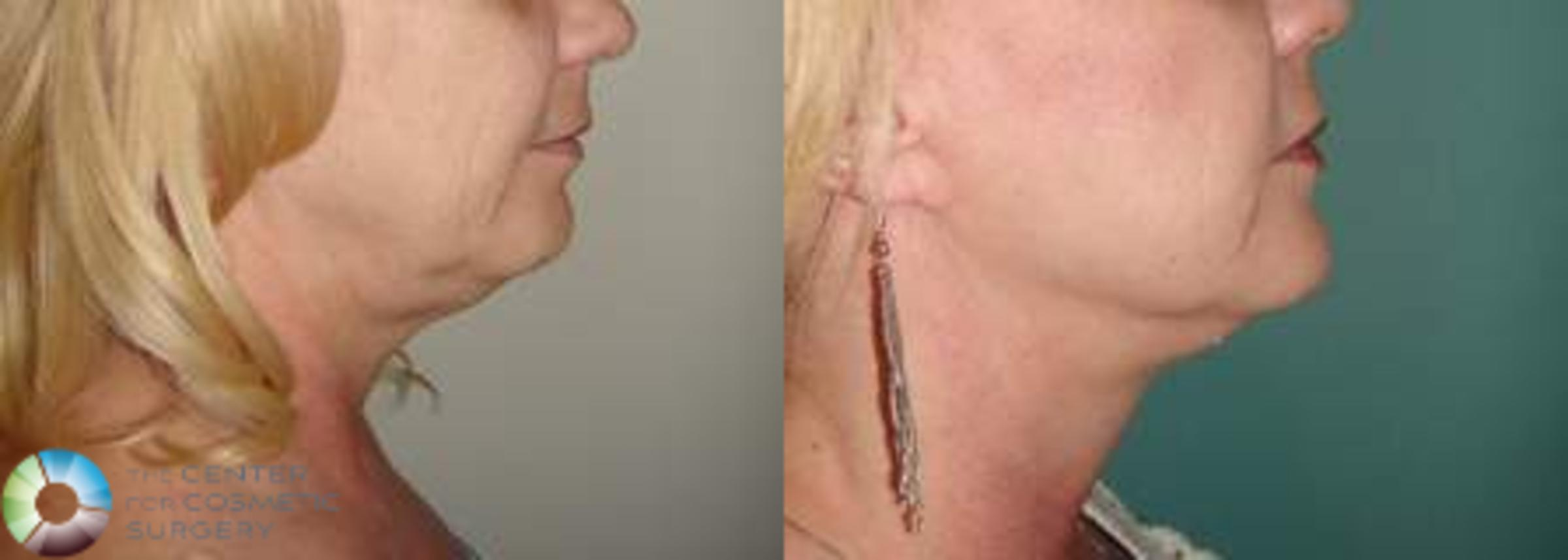 Mini Facelift Case 618 Before & After View #3 | Golden, CO | The Center for Cosmetic Surgery