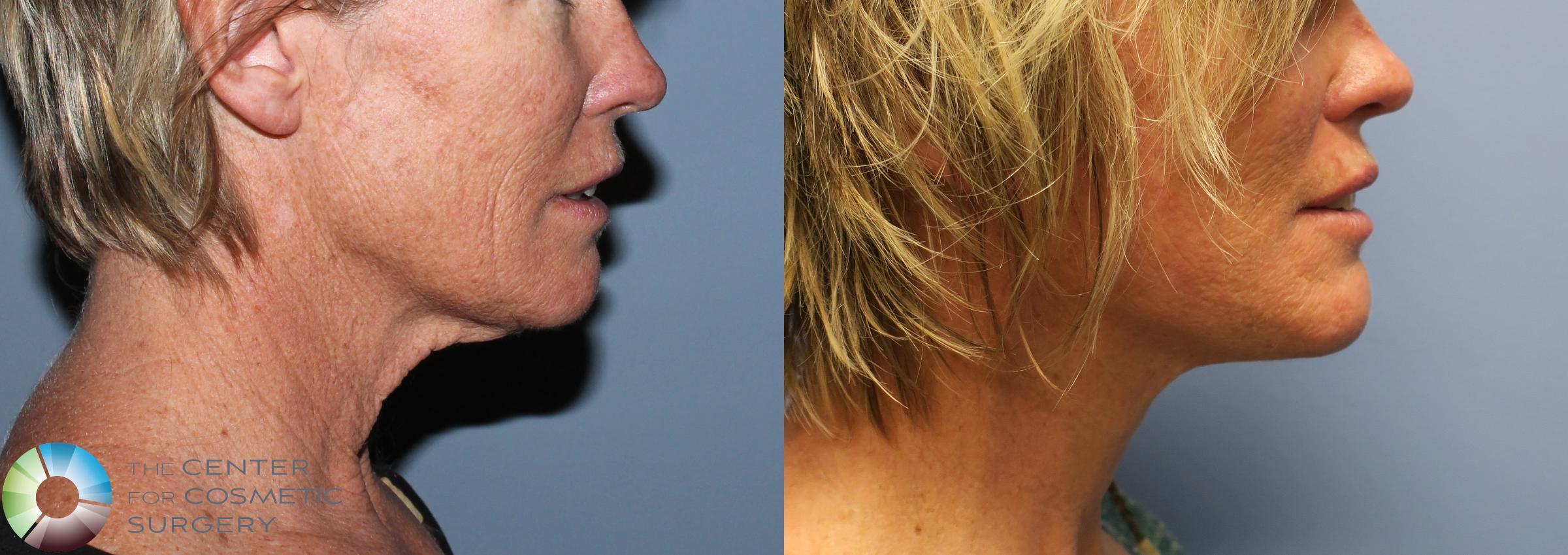 Mini Facelift Case 771 Before & After View #1 | Denver & Golden, CO | The Center for Cosmetic Surgery