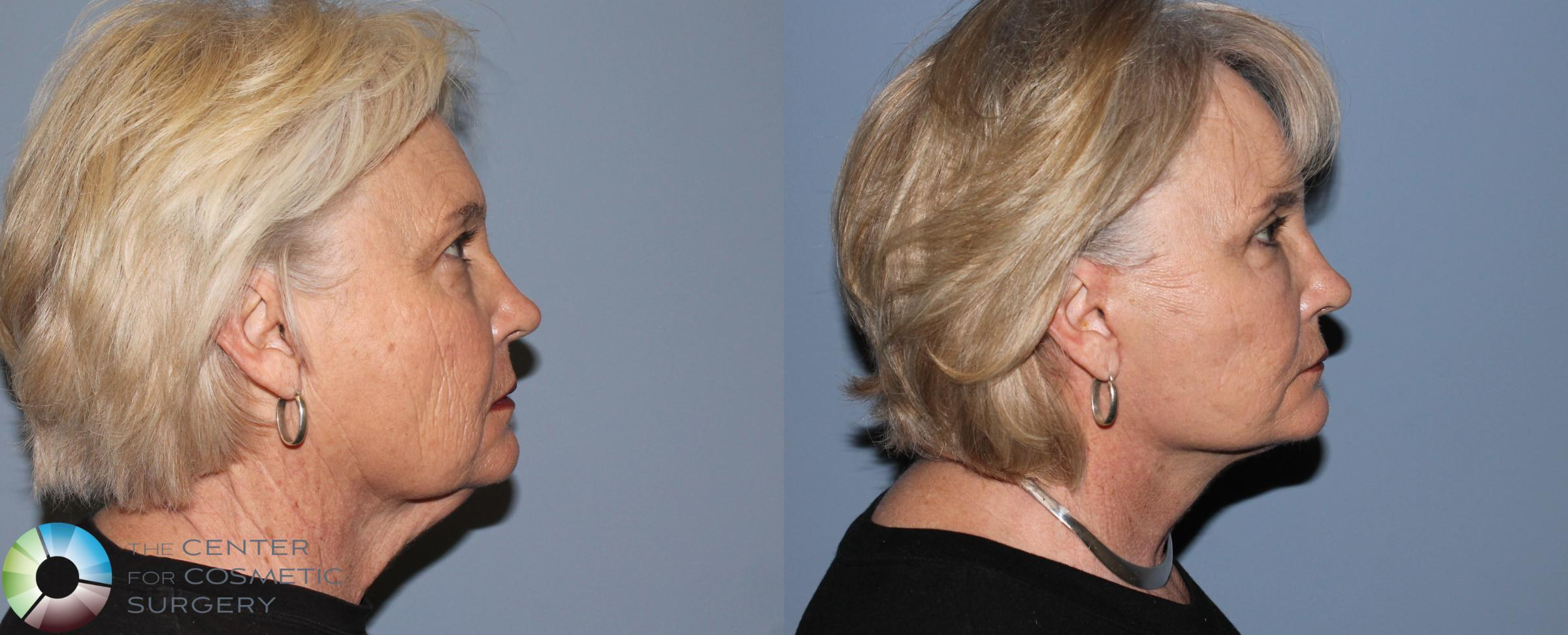Neck Lift Case 773 Before & After View #1 | Golden, CO | The Center for Cosmetic Surgery