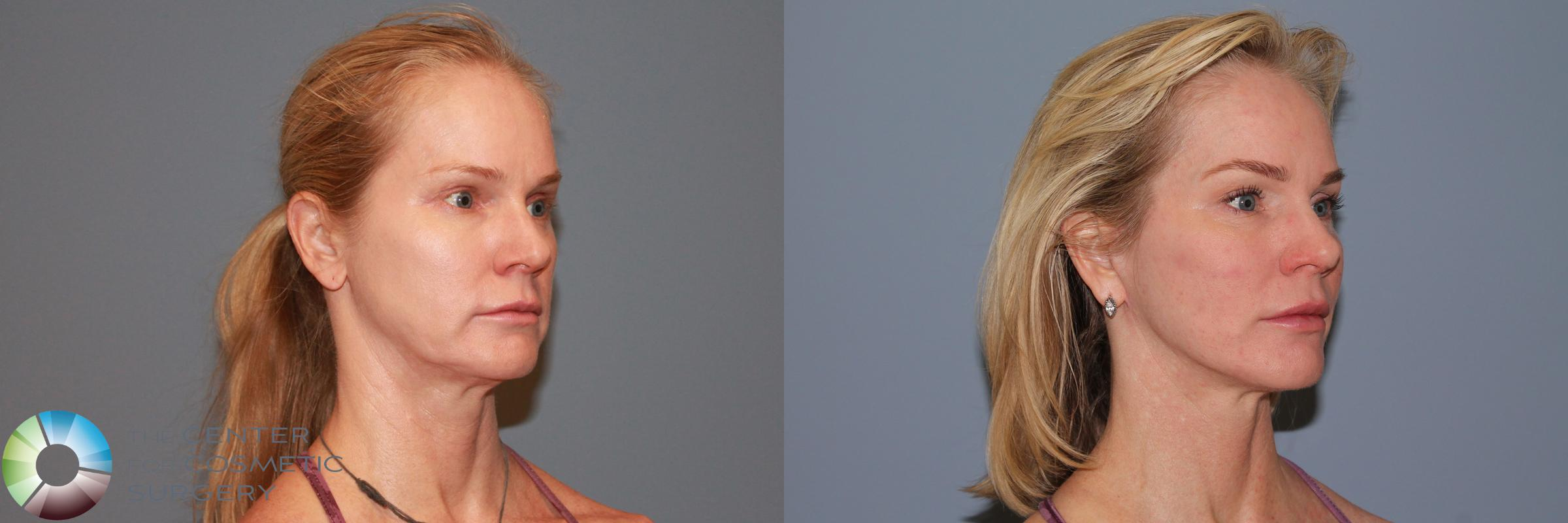 Mini Facelift Case 990 Before & After View #1 | Golden, CO | The Center for Cosmetic Surgery