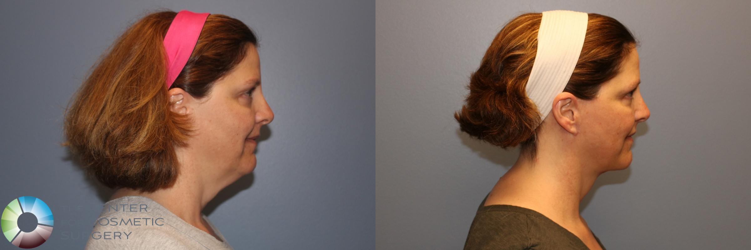 Mini Facelift Case 998 Before & After View #1 | Golden, CO | The Center for Cosmetic Surgery