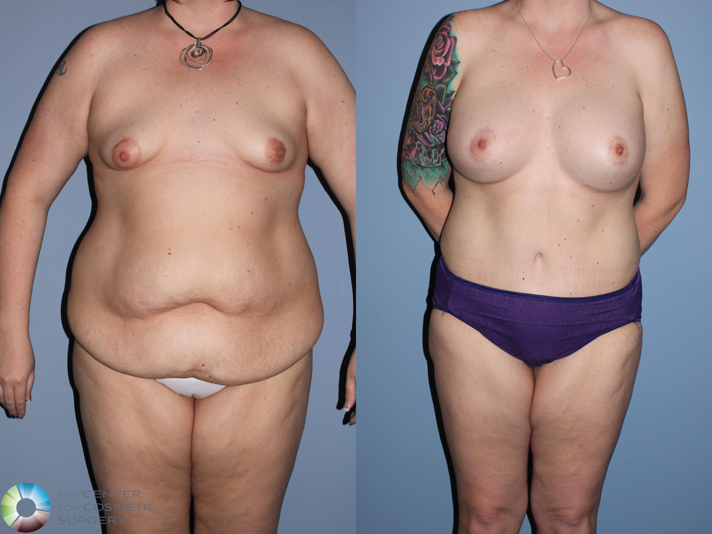 Mommy Makeover Case 11307 Before & After Front | Golden, CO | The Center for Cosmetic Surgery