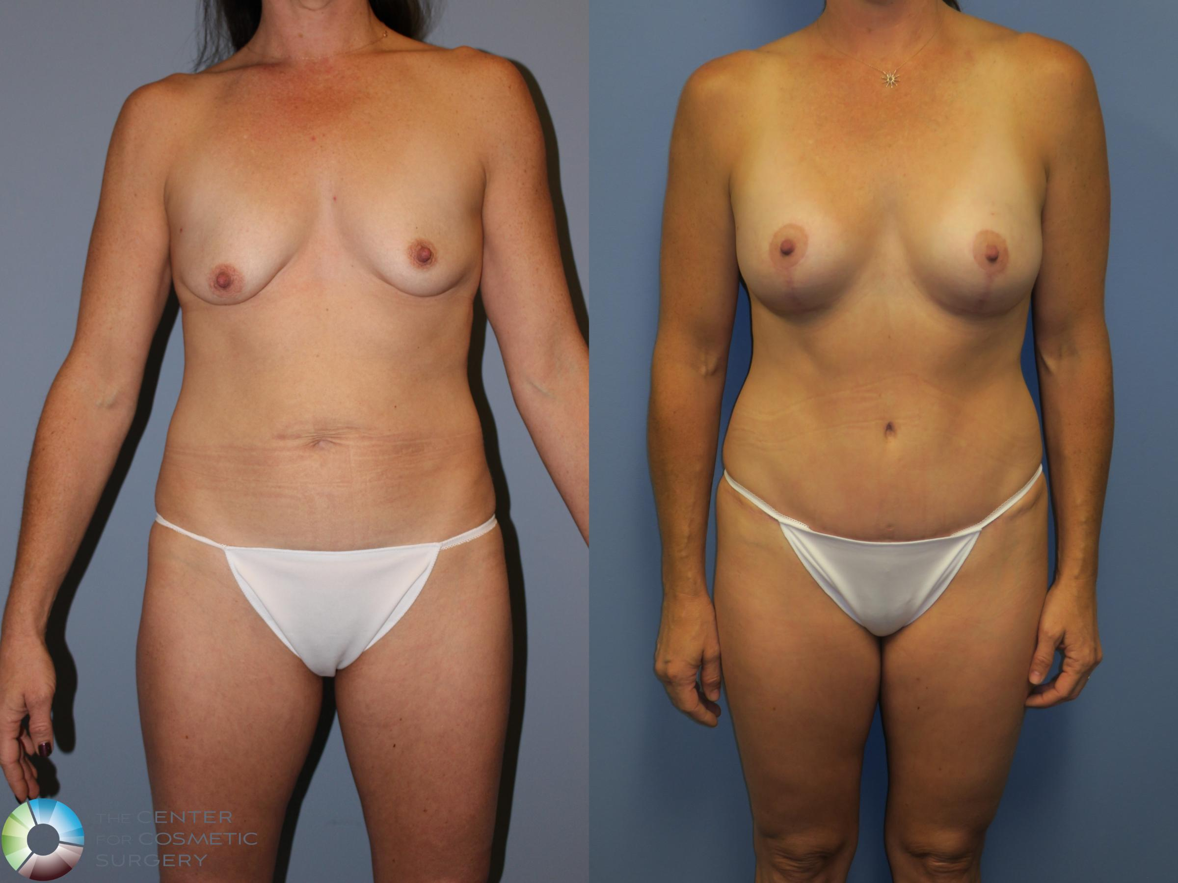 Mommy Makeover Case 11310 Before & After Front | Denver & Golden, CO | The Center for Cosmetic Surgery