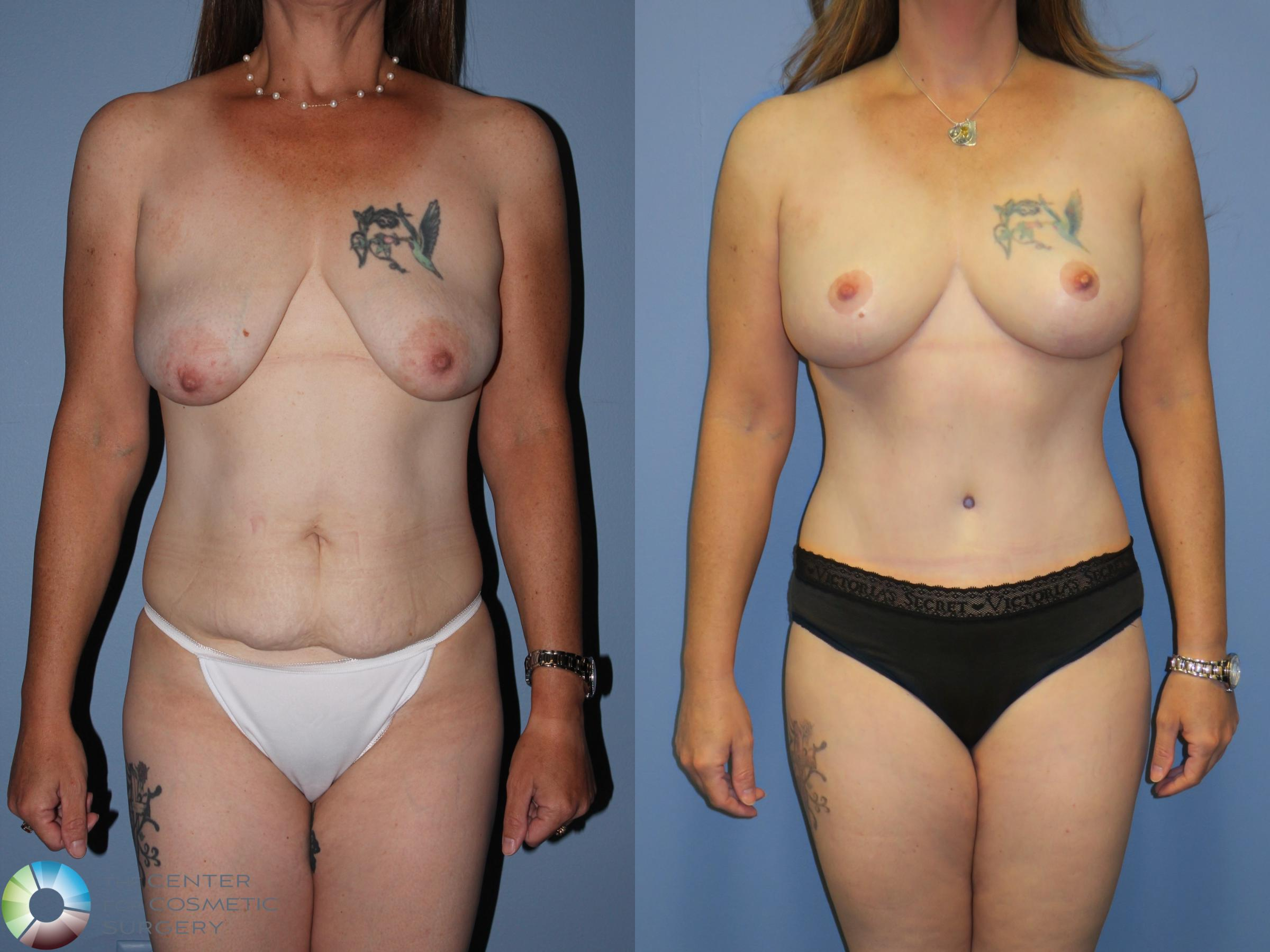Mommy Makeover Case 11314 Before & After Front | Golden, CO | The Center for Cosmetic Surgery