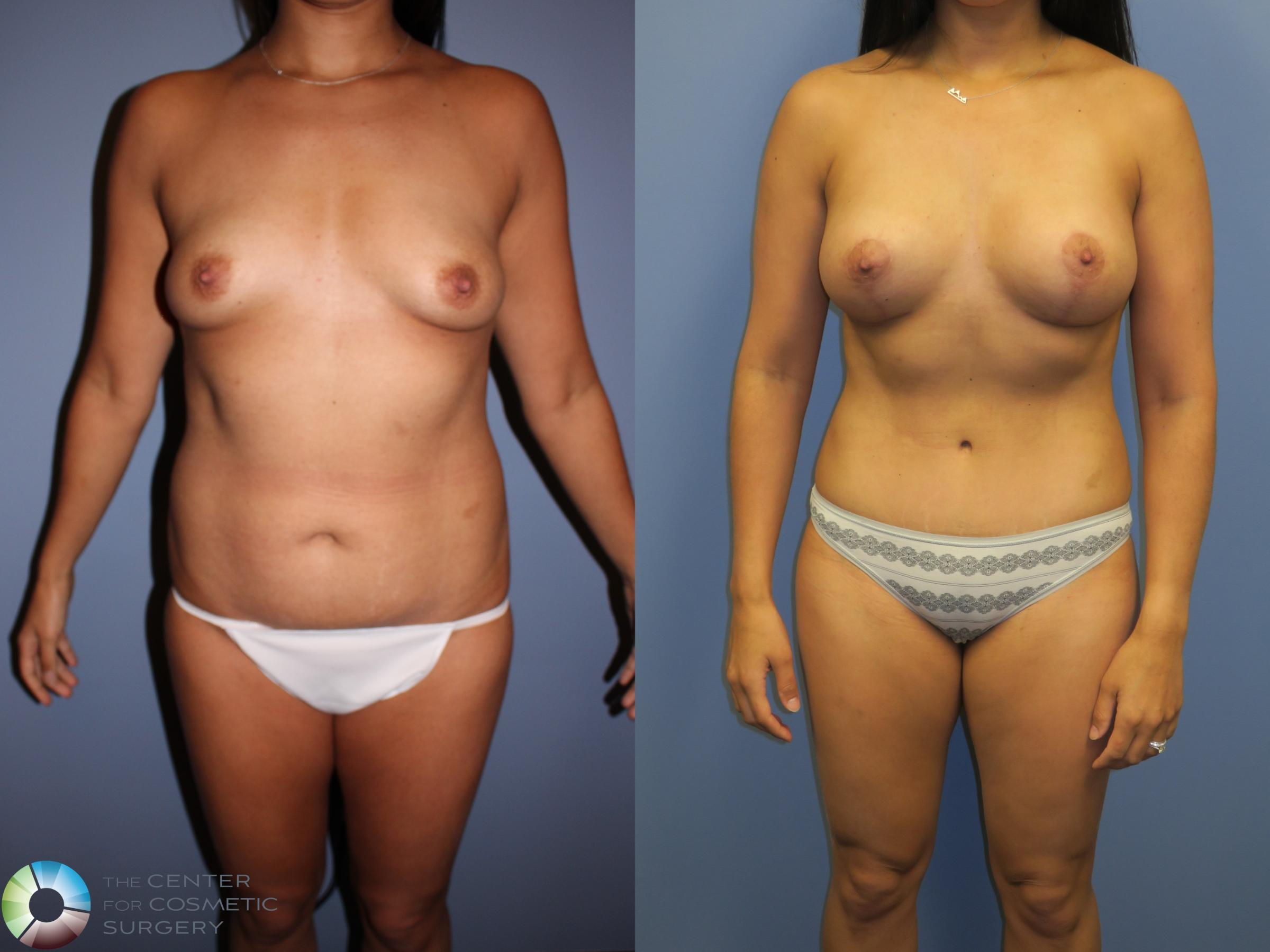 Breast Lift Case 11358 Before & After Front | Golden, CO | The Center for Cosmetic Surgery