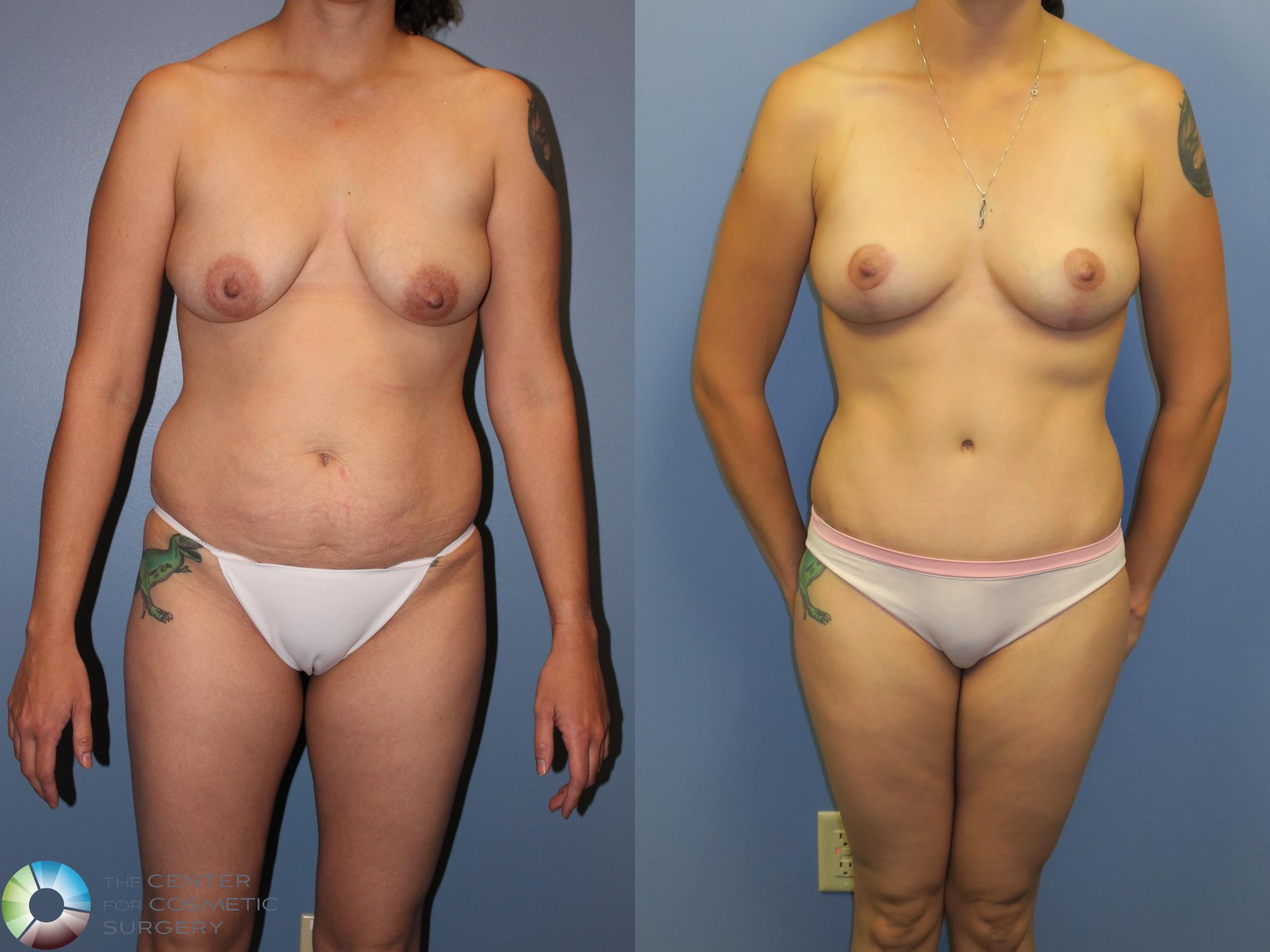 Mommy Makeover Case 11379 Before & After Front | Denver & Golden, CO | The Center for Cosmetic Surgery