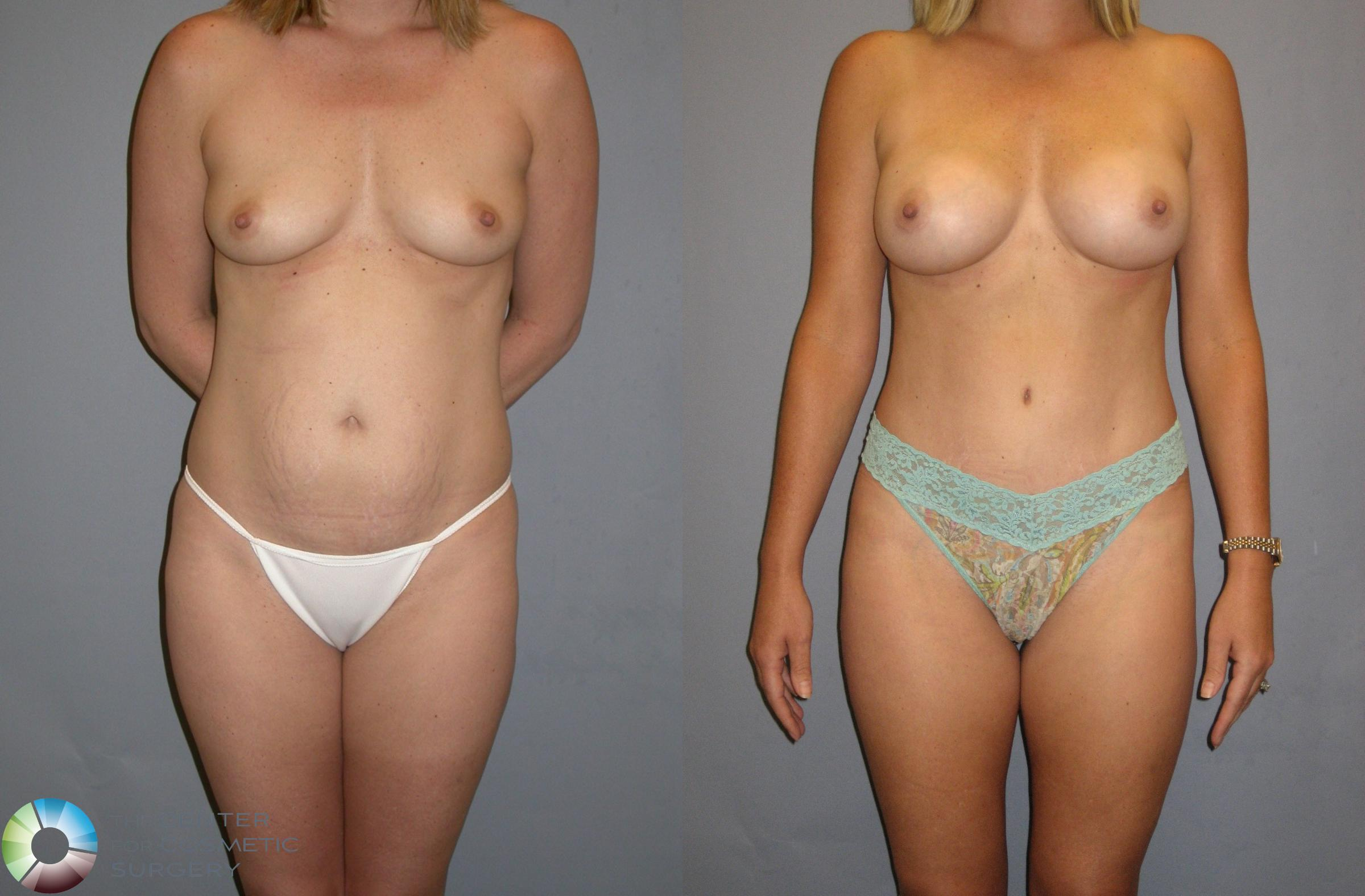 Breast Augmentation Case 115 Before & After View #1 | Golden, CO | The Center for Cosmetic Surgery
