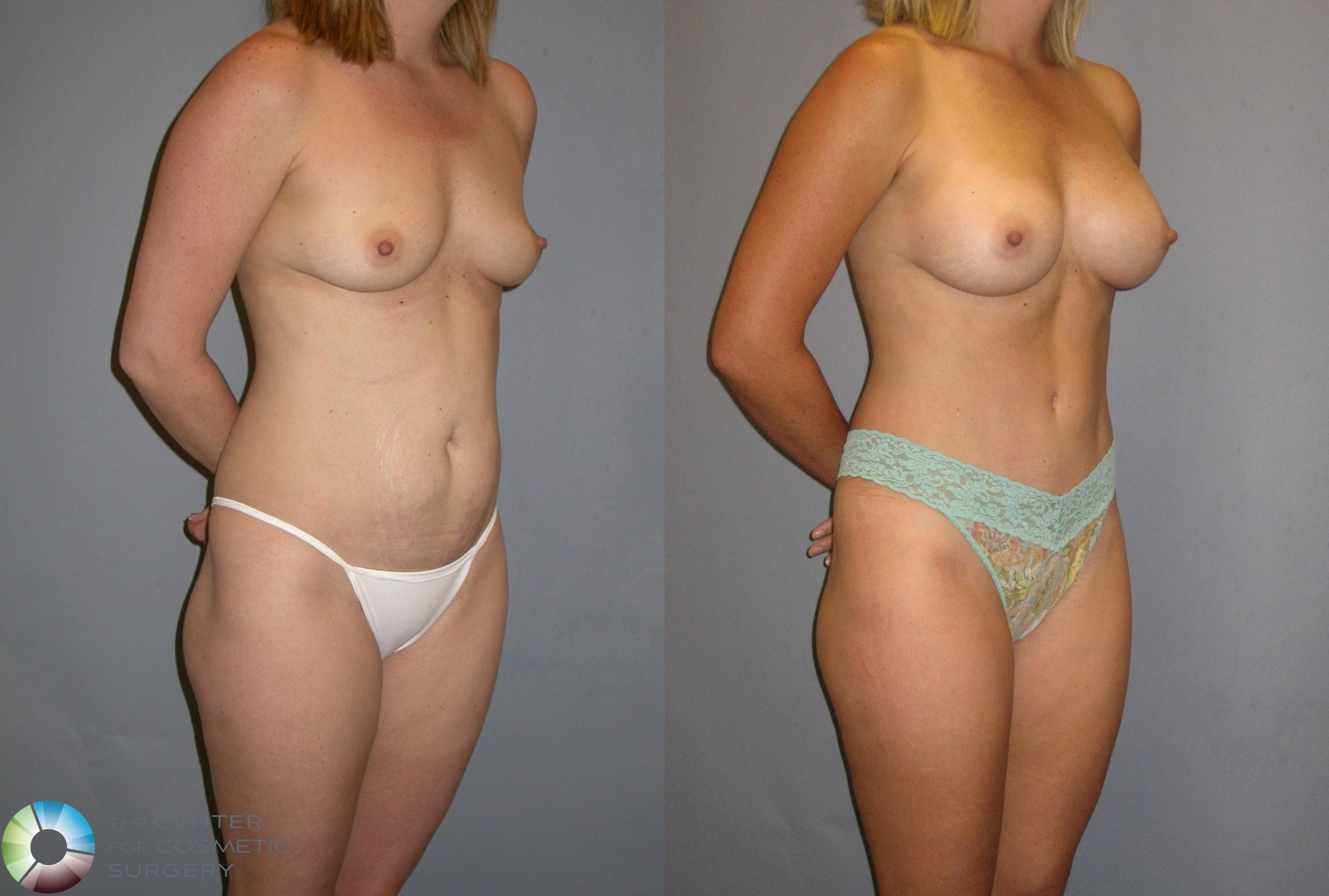 Breast Augmentation Case 115 Before & After View #2 | Golden, CO | The Center for Cosmetic Surgery