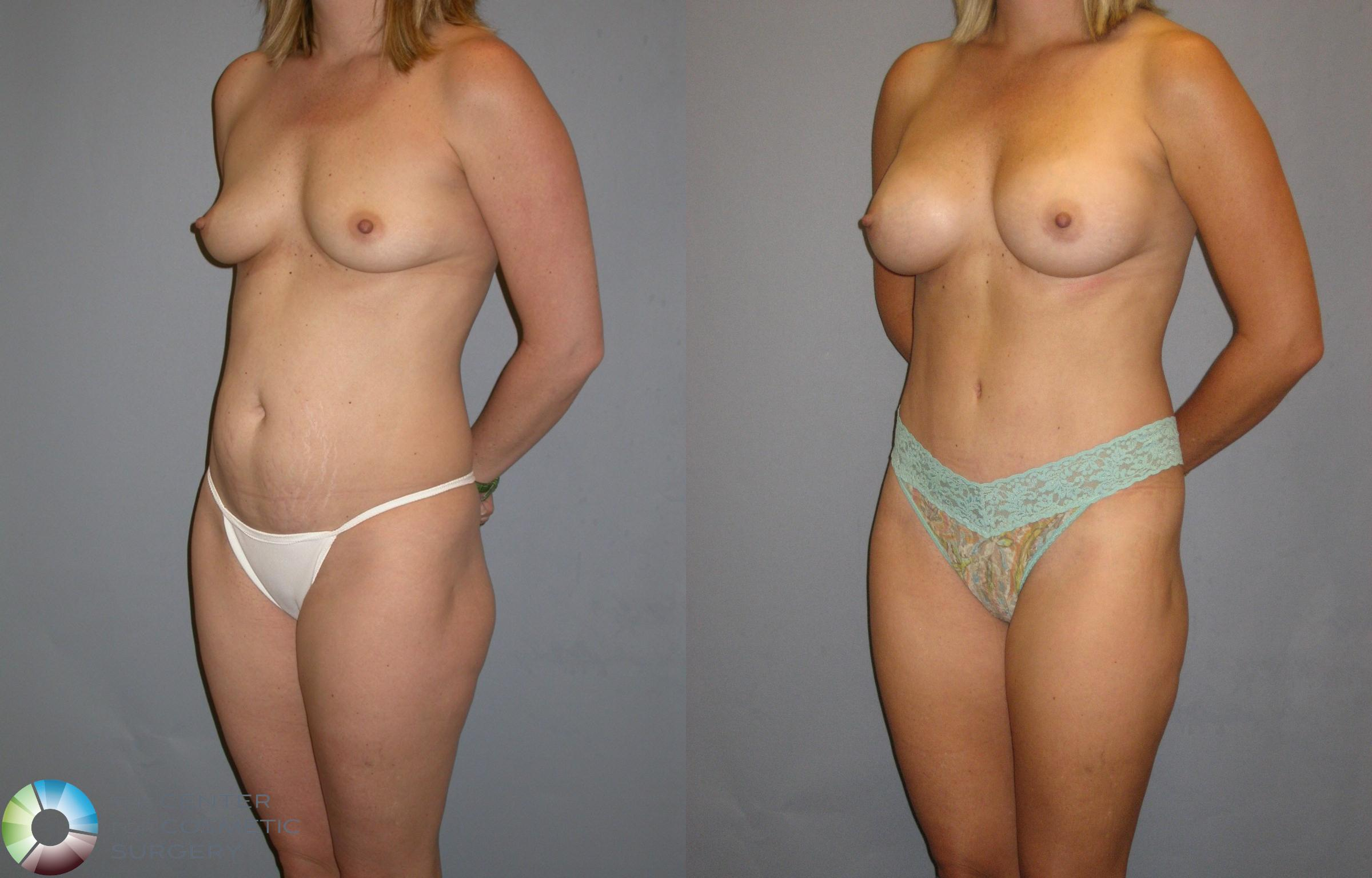 Breast Augmentation Case 115 Before & After View #3 | Golden, CO | The Center for Cosmetic Surgery
