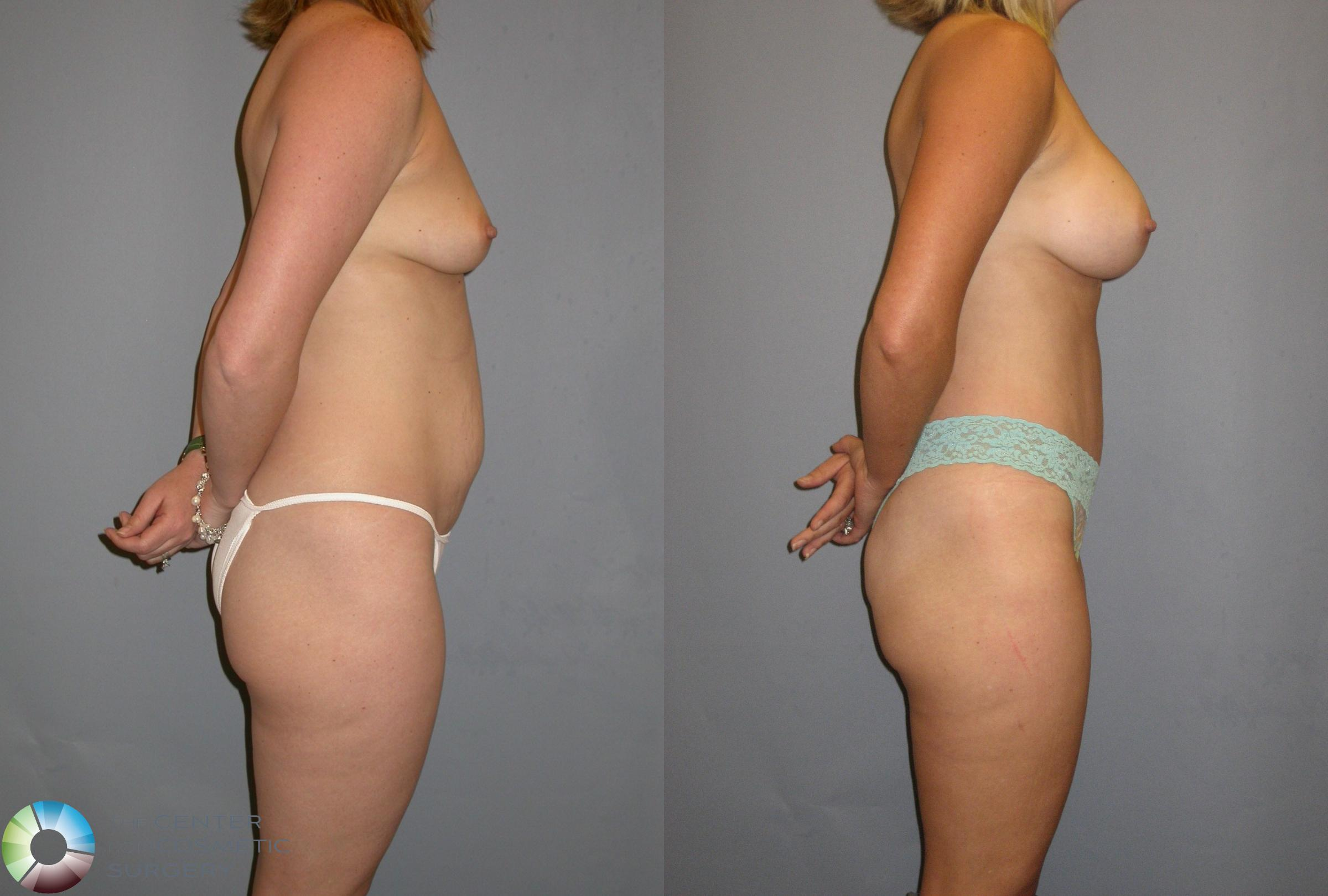 Breast Augmentation Case 115 Before & After View #4 | Golden, CO | The Center for Cosmetic Surgery