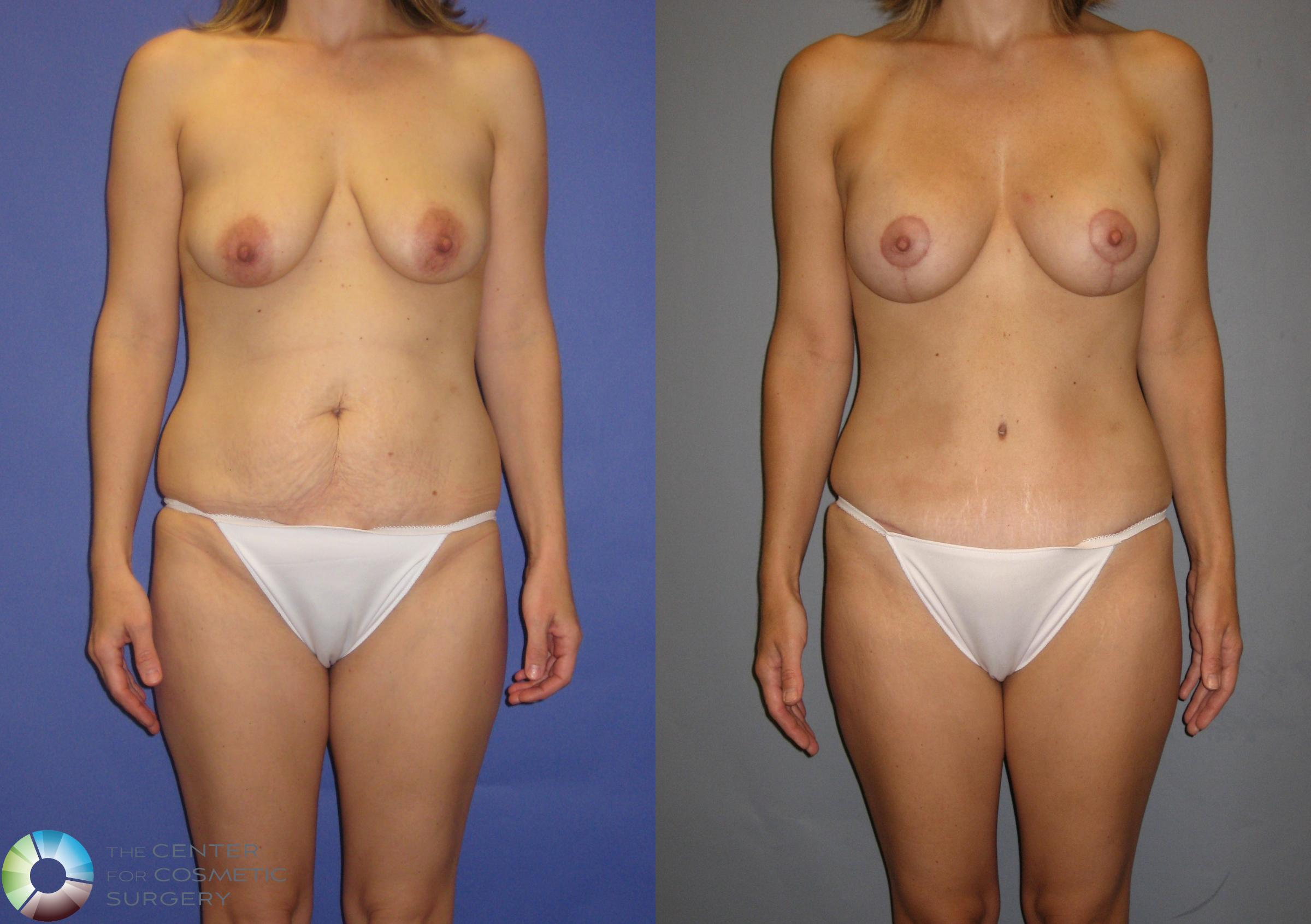 Breast Augmentation Case 299 Before & After View #1 | Denver & Golden, CO | The Center for Cosmetic Surgery