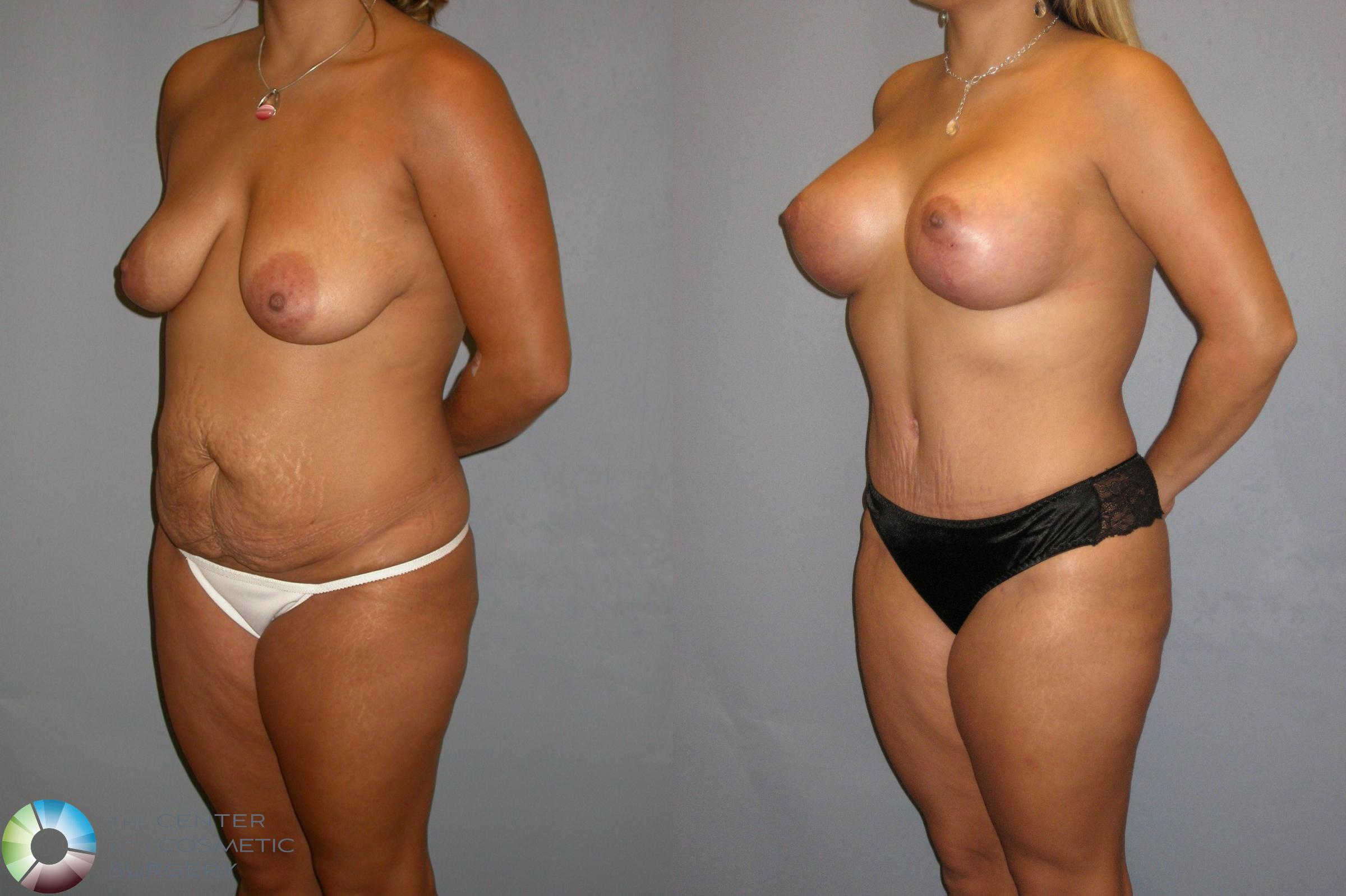 Tummy Tuck Case 346 Before & After View #1 | Golden, CO | The Center for Cosmetic Surgery