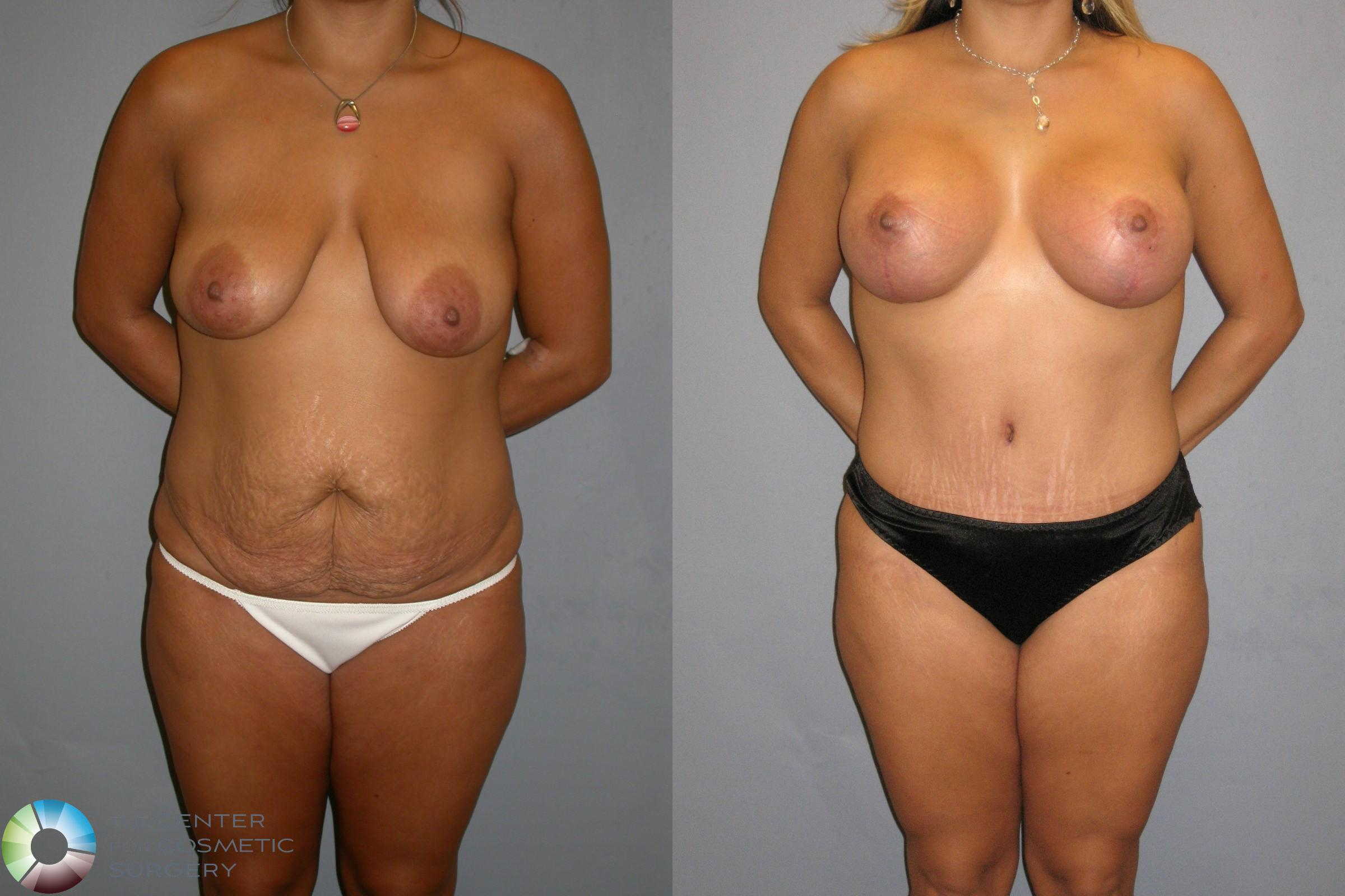 Tummy Tuck Case 346 Before & After View #2 | Golden, CO | The Center for Cosmetic Surgery