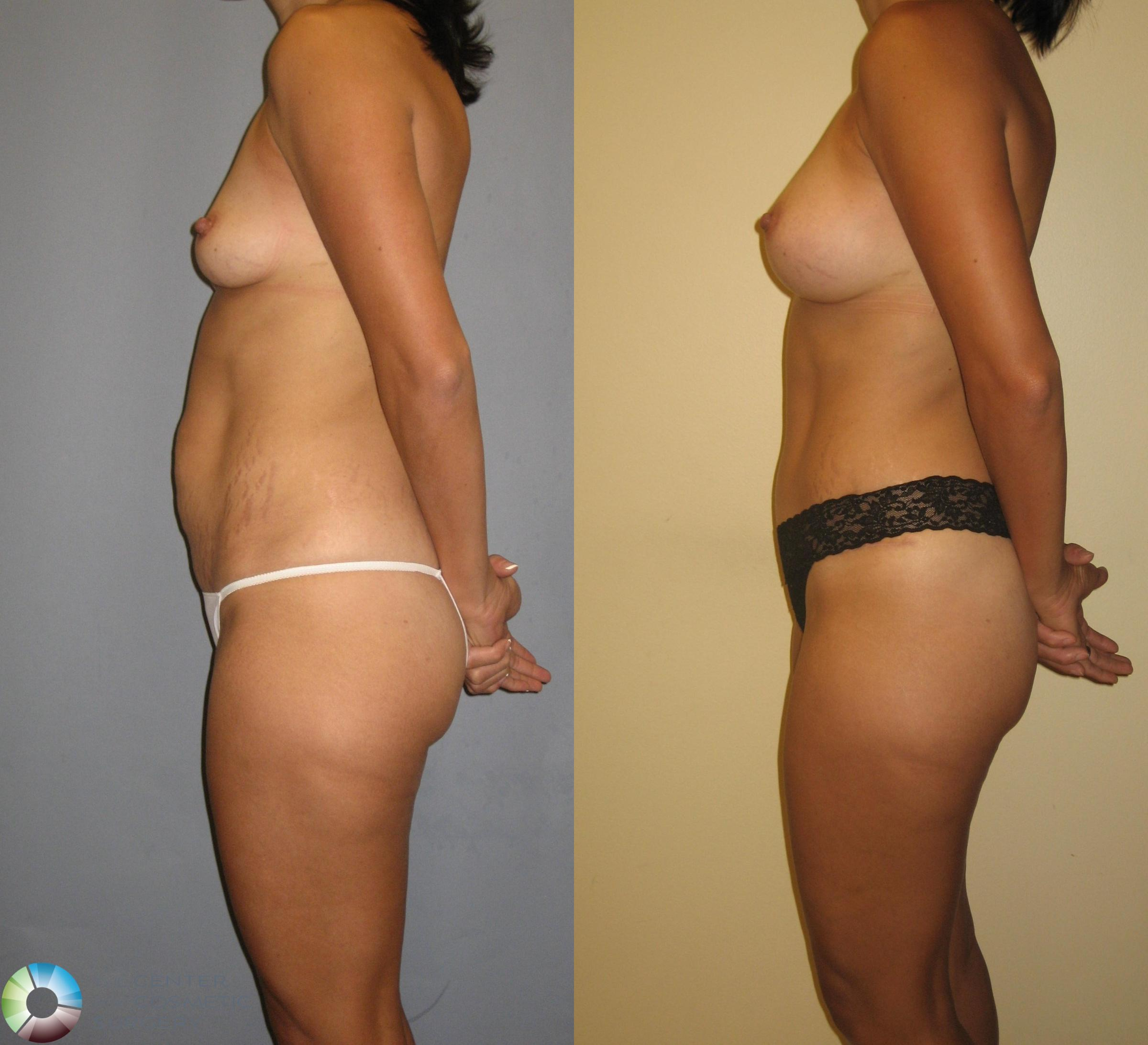 Mommy Makeover Case 382 Before & After View #4 | Golden, CO | The Center for Cosmetic Surgery
