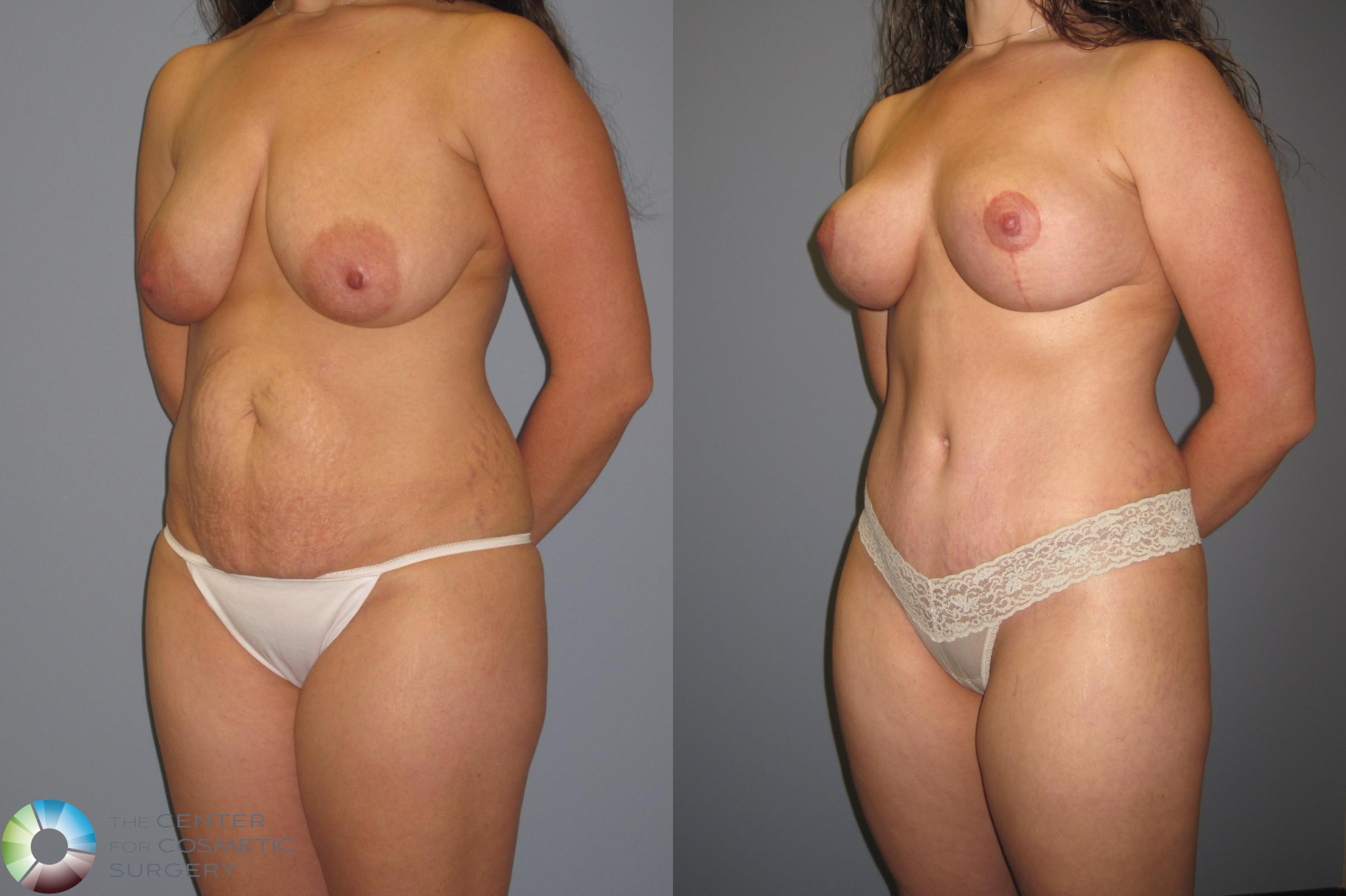 Tummy Tuck Case 457 Before & After View #2 | Golden, CO | The Center for Cosmetic Surgery