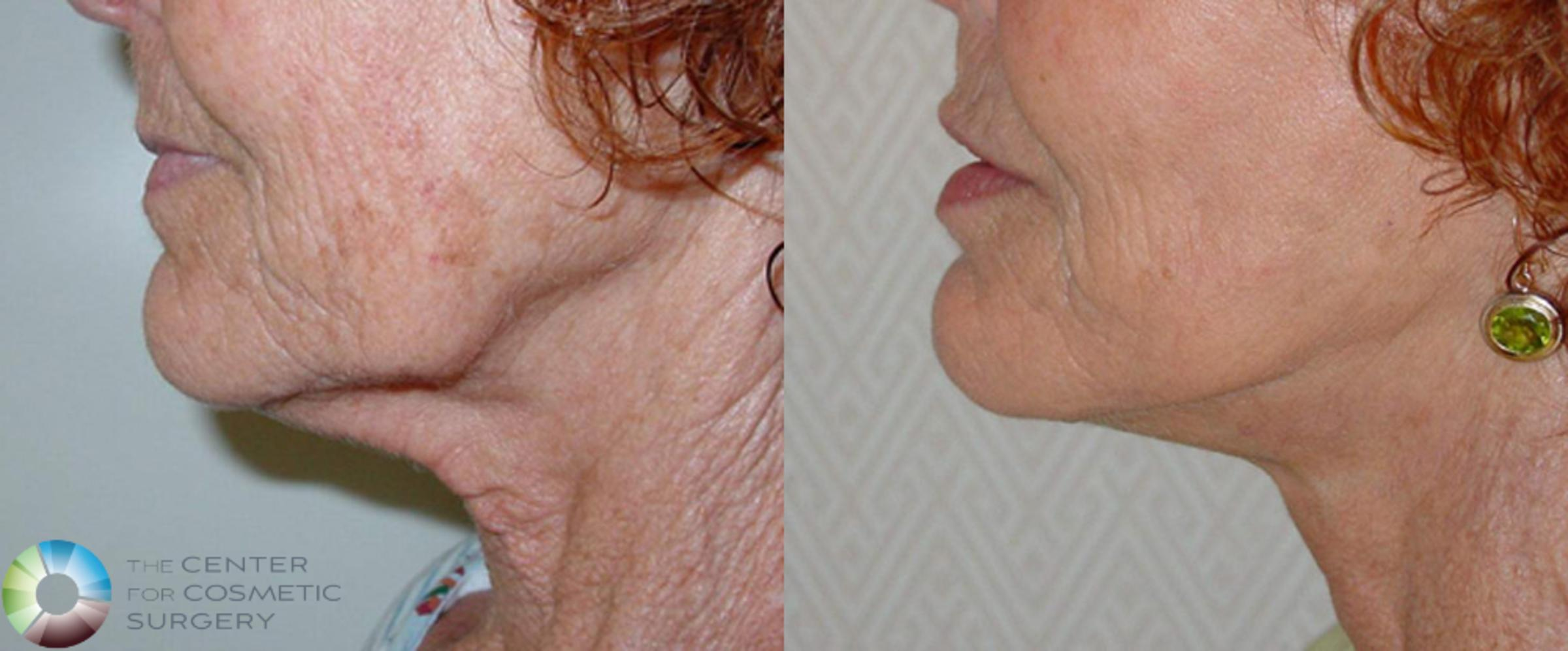 Neck Lift Case 509 Before & After View #1 | Golden, CO | The Center for Cosmetic Surgery