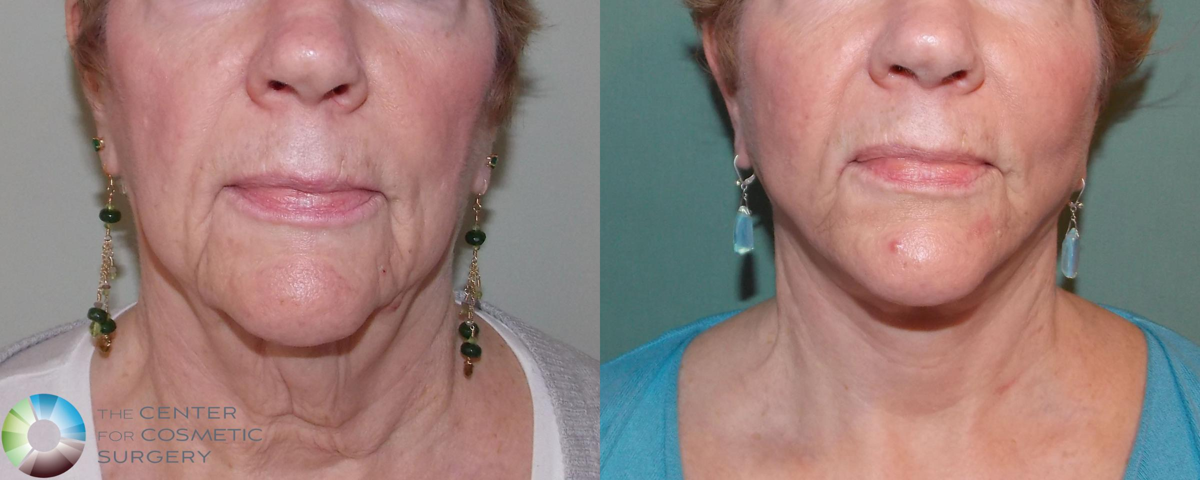Neck Lift Case 691 Before & After View #1 | Golden, CO | The Center for Cosmetic Surgery