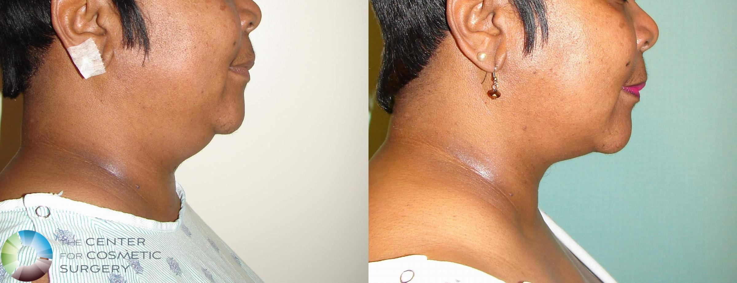 Neck Lift Case 733 Before & After View #1 | Golden, CO | The Center for Cosmetic Surgery