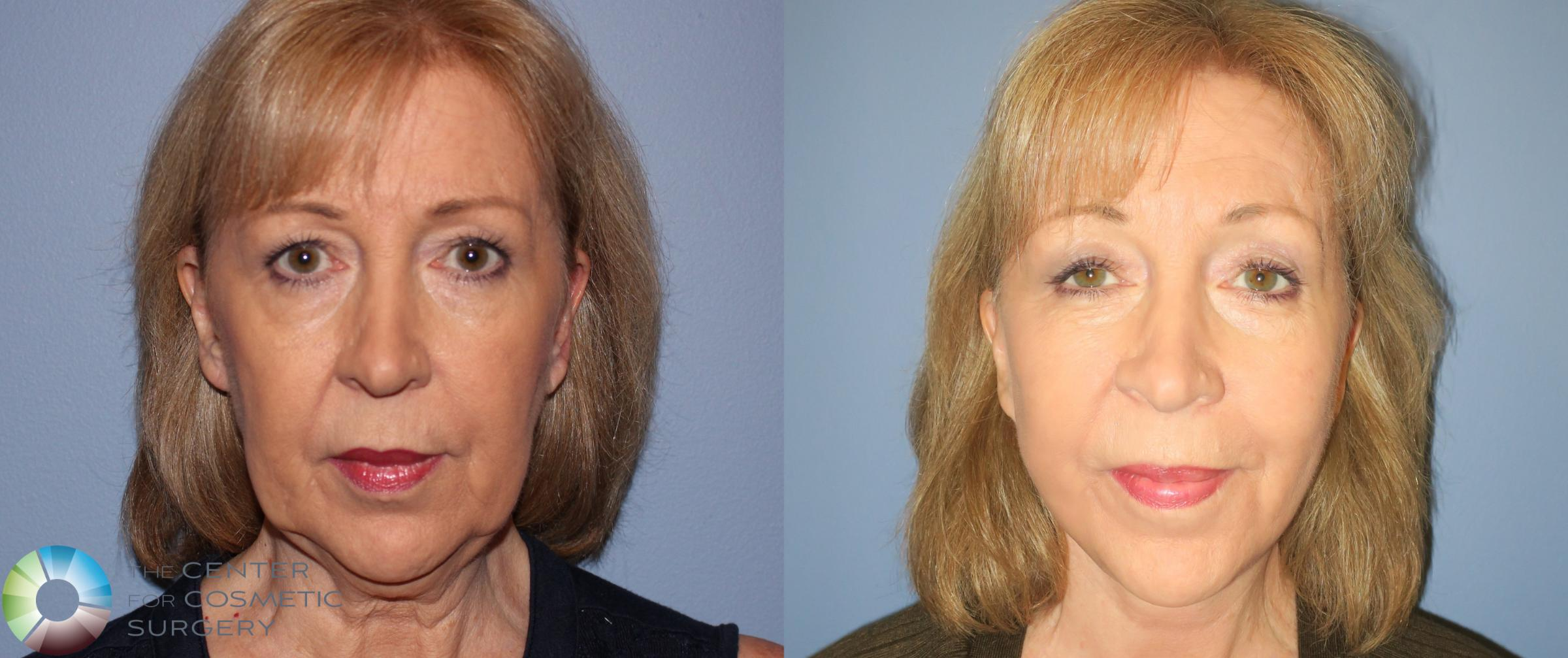 Neck Lift Case 810 Before & After View #1 | Golden, CO | The Center for Cosmetic Surgery