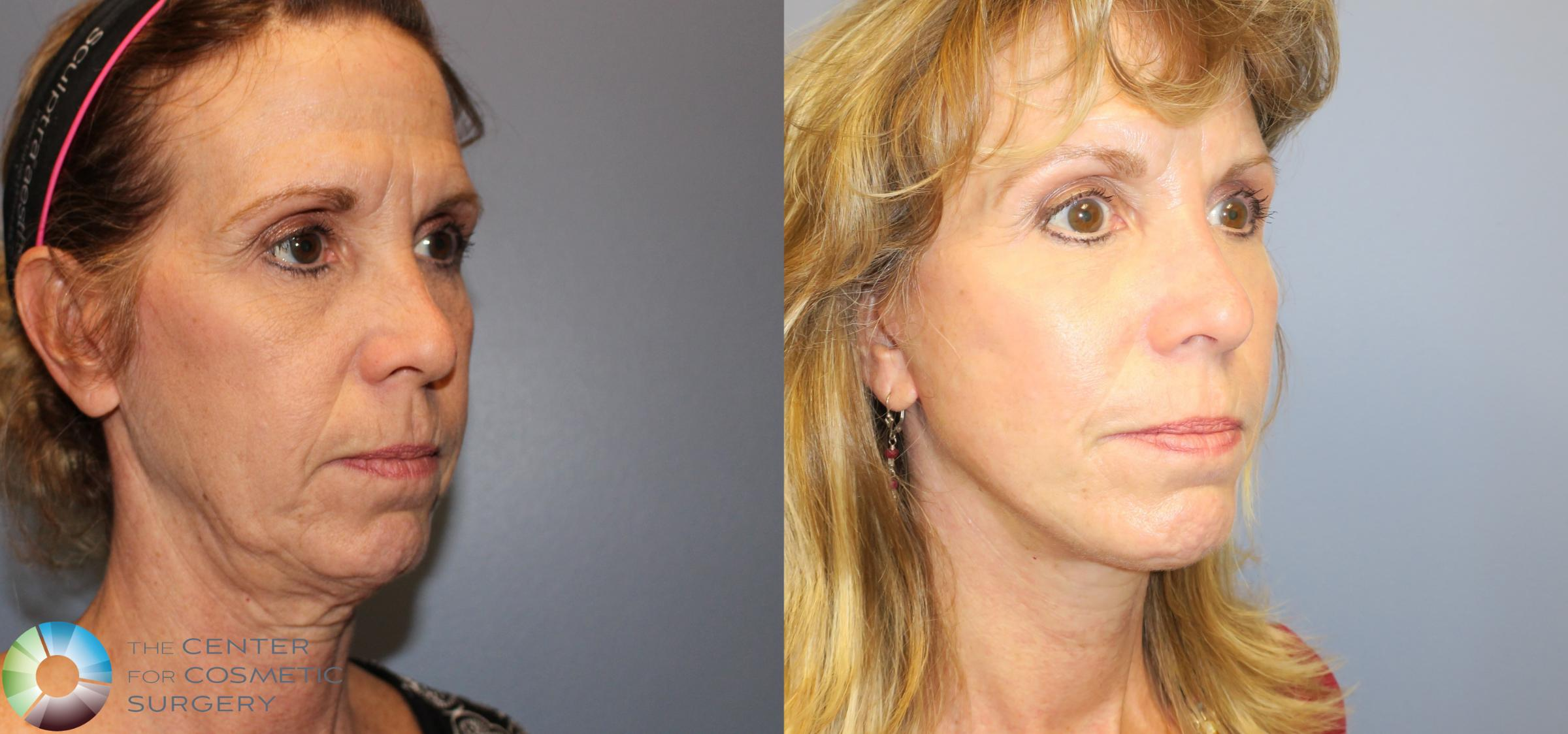 Neck Lift Case 826 Before & After View #1 | Golden, CO | The Center for Cosmetic Surgery