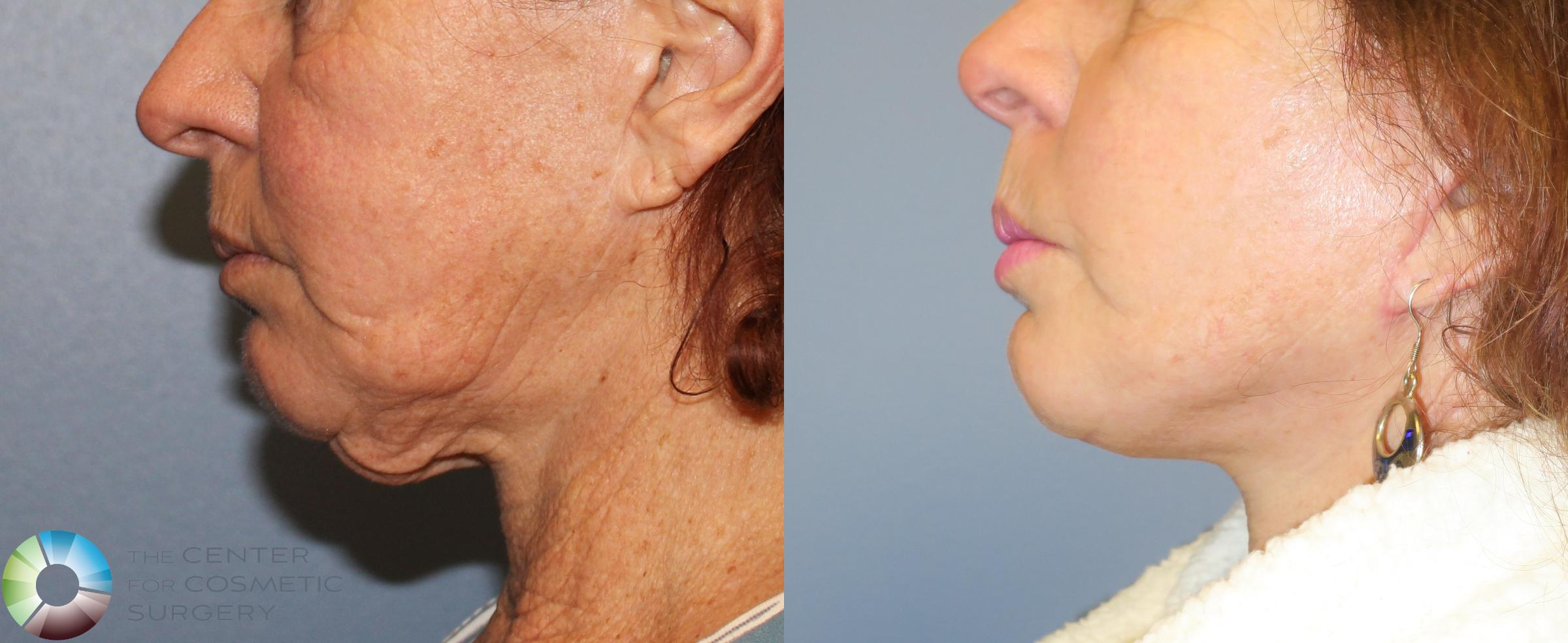 Neck Lift Case 827 Before & After View #1 | Golden, CO | The Center for Cosmetic Surgery