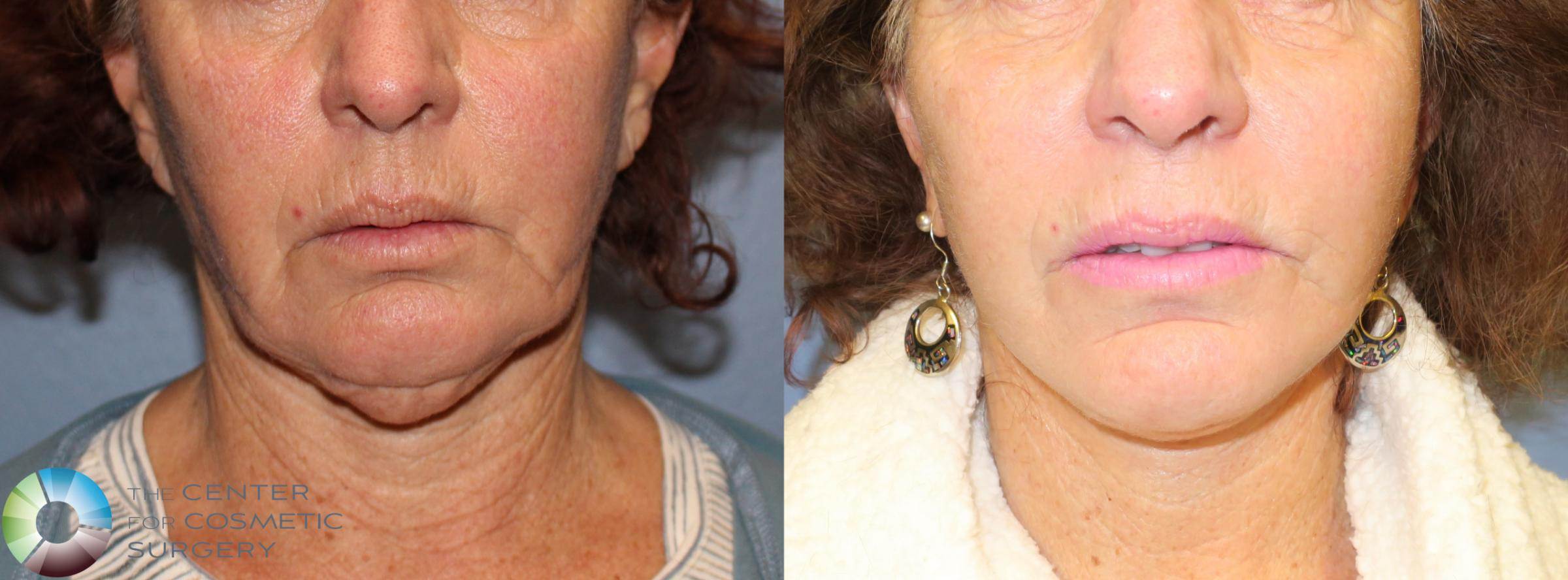 Neck Lift Case 827 Before & After View #2 | Golden, CO | The Center for Cosmetic Surgery