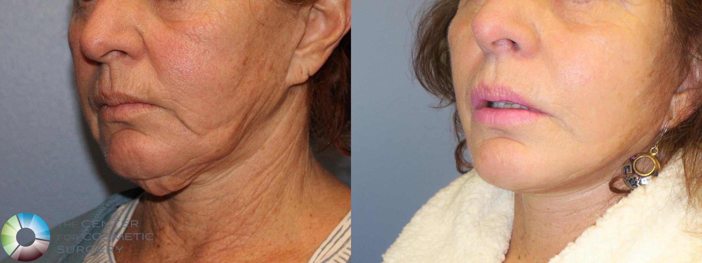 Neck Lift Case 827 Before & After View #3 | Golden, CO | The Center for Cosmetic Surgery