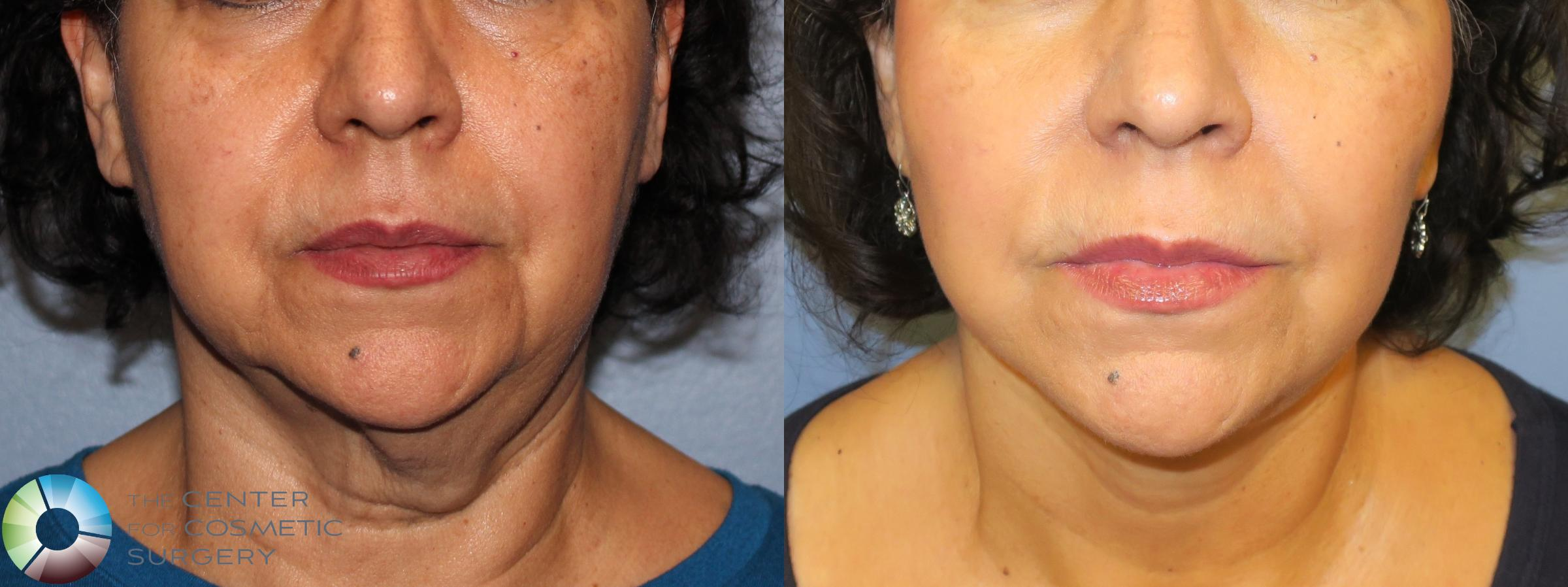 Neck Lift Case 898 Before & After View #1 | Golden, CO | The Center for Cosmetic Surgery