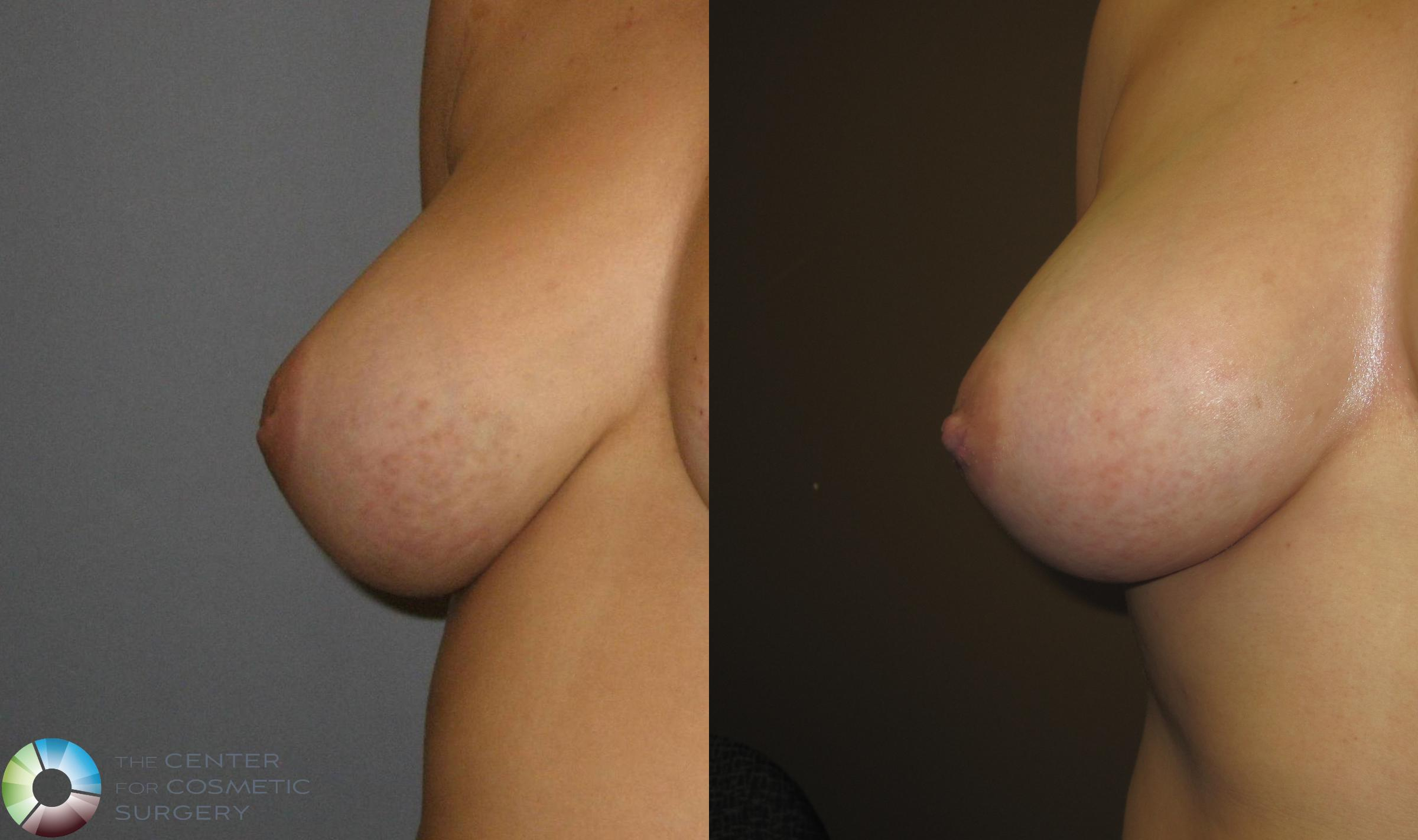Inverted Nipple Repair Case 391 Before & After View #1 | Denver & Golden, CO | The Center for Cosmetic Surgery