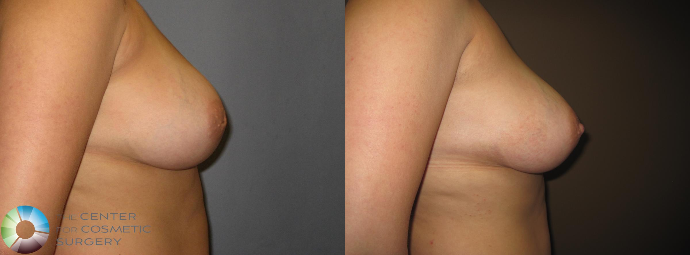 Inverted Nipple Repair Case 391 Before & After View #2 | Denver & Golden, CO | The Center for Cosmetic Surgery
