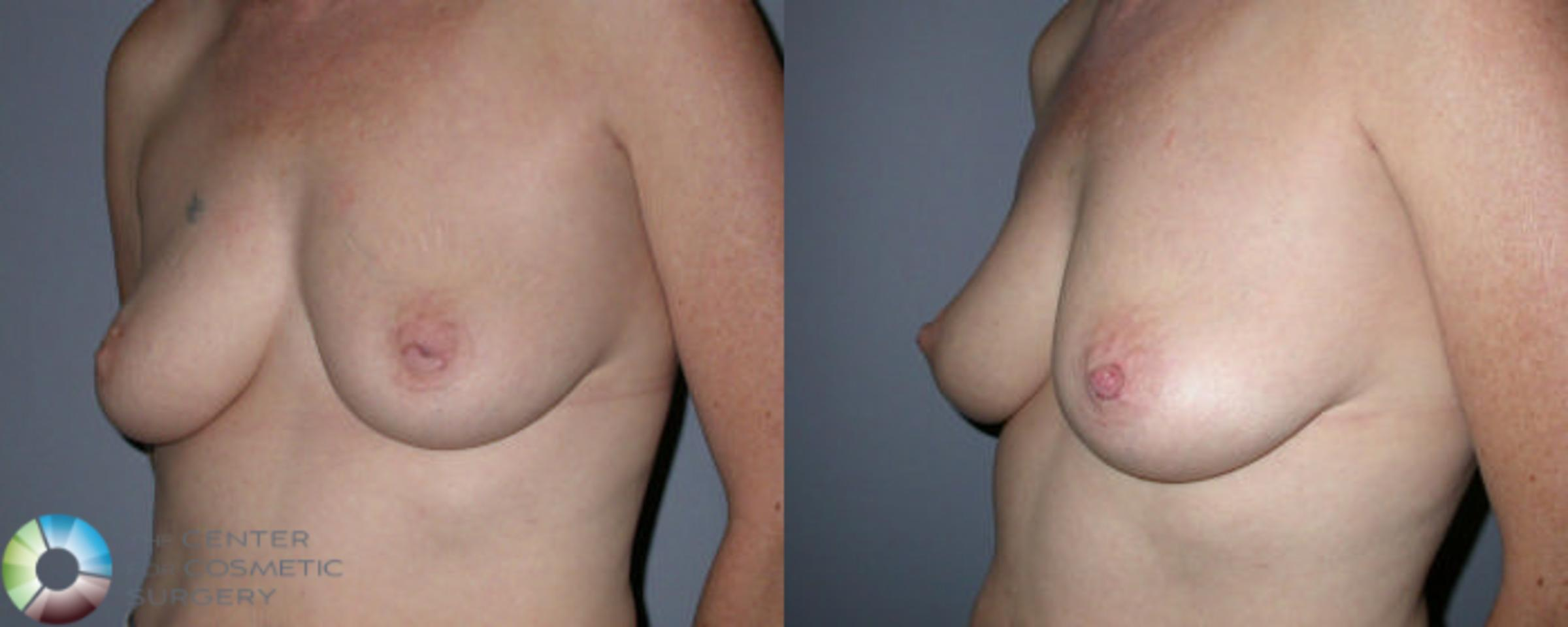 Nipple Repair Case 58 Before & After View #1 | Golden, CO | The Center for Cosmetic Surgery