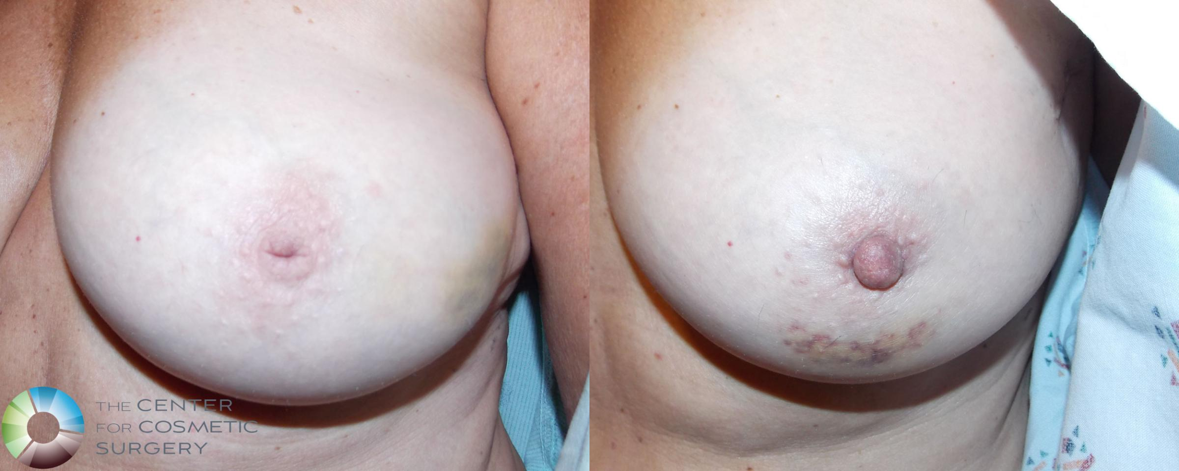 Nipple Repair Case 710 Before & After View #1 | Golden, CO | The Center for Cosmetic Surgery