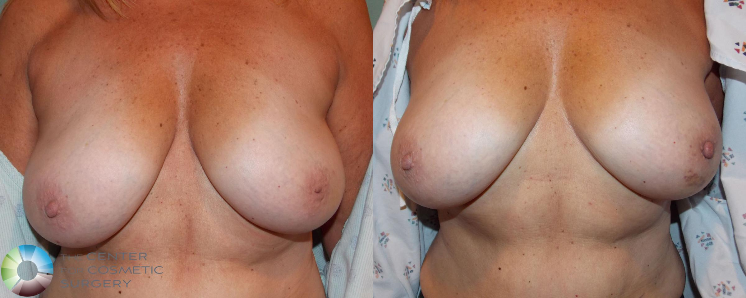 Inverted Nipple Repair Case 710 Before & After View #2 | Denver & Golden, CO | The Center for Cosmetic Surgery