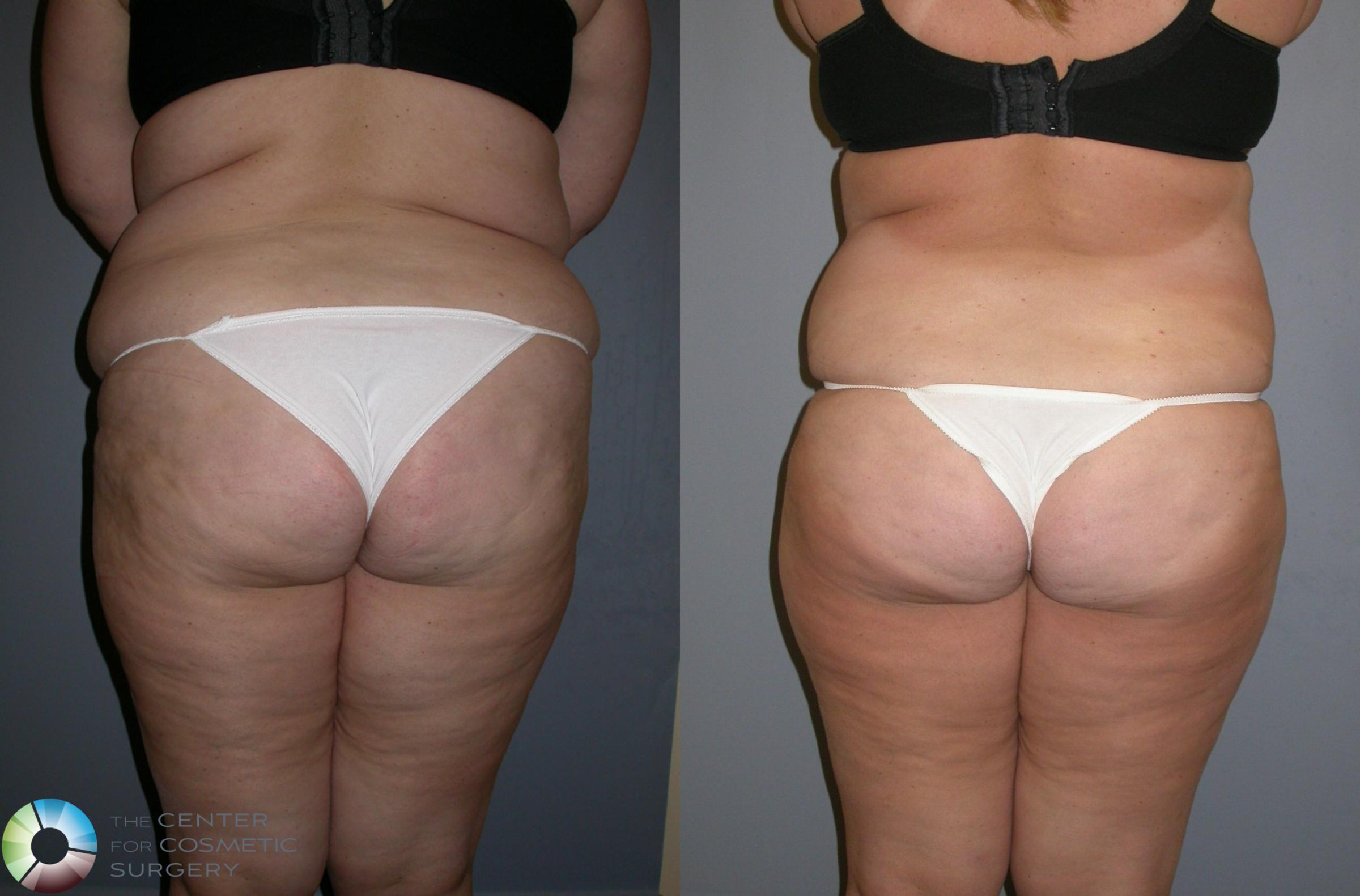 Power-assisted Liposuction Case 133 Before & After View #1 | Golden, CO | The Center for Cosmetic Surgery