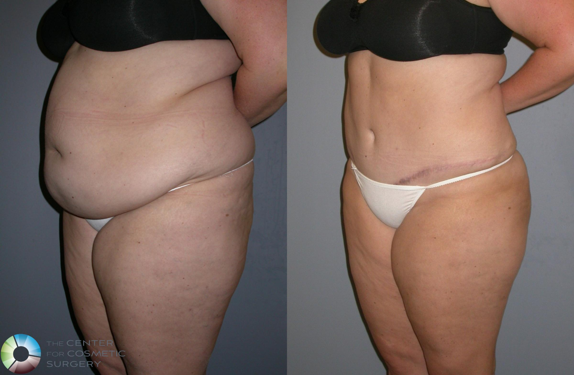 Power-assisted Liposuction Case 133 Before & After View #2 | Golden, CO | The Center for Cosmetic Surgery