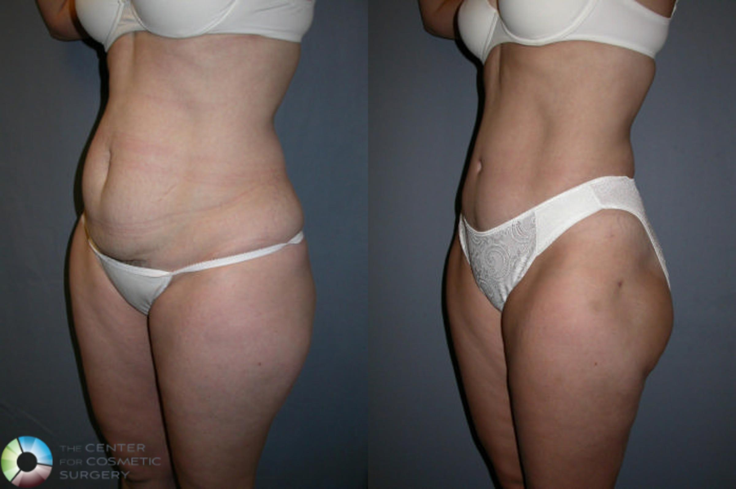 Power-assisted Liposuction Case 17 Before & After View #2 | Golden, CO | The Center for Cosmetic Surgery