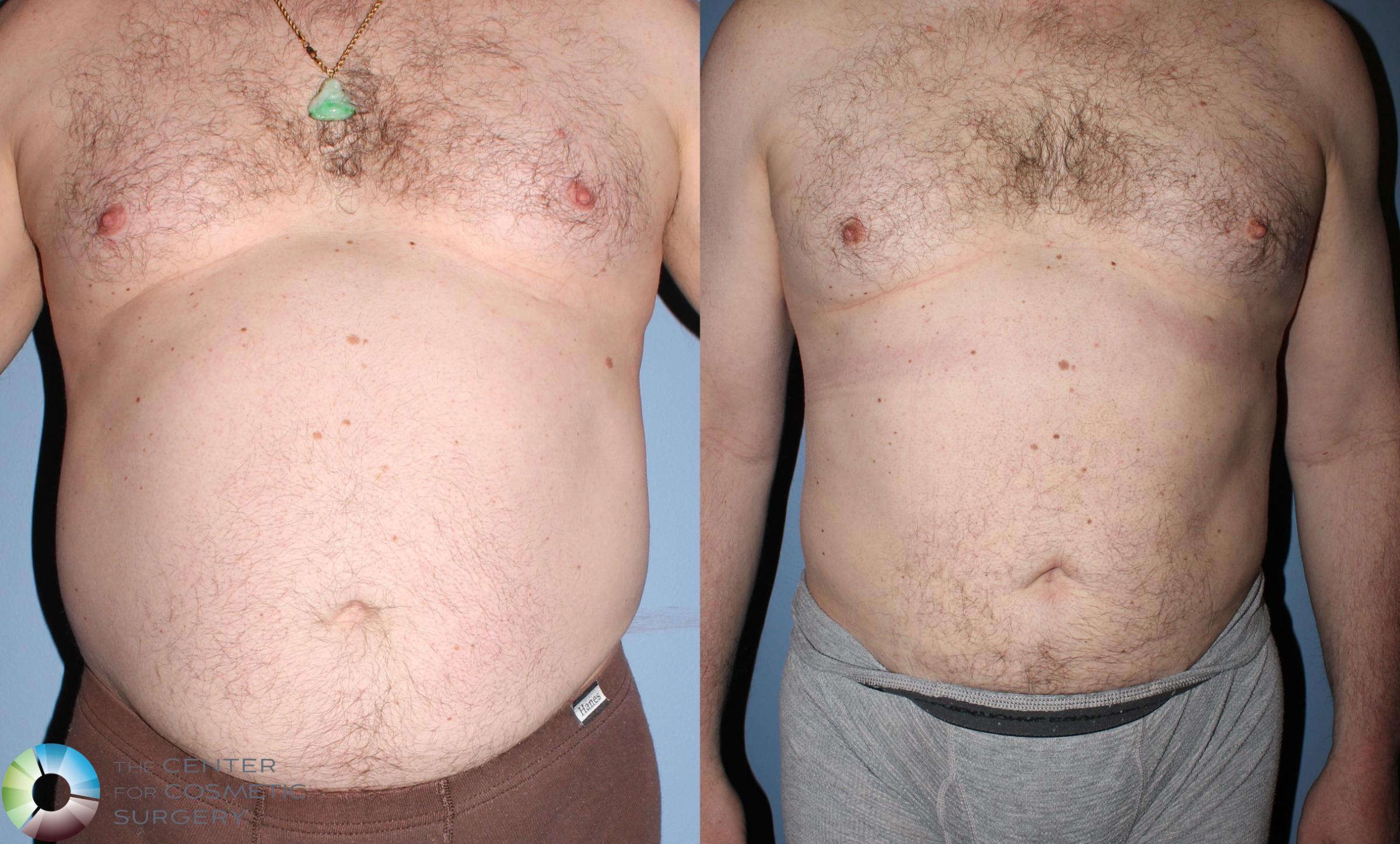 Liposuction Case 825 Before & After View #1 | Golden, CO | The Center for Cosmetic Surgery