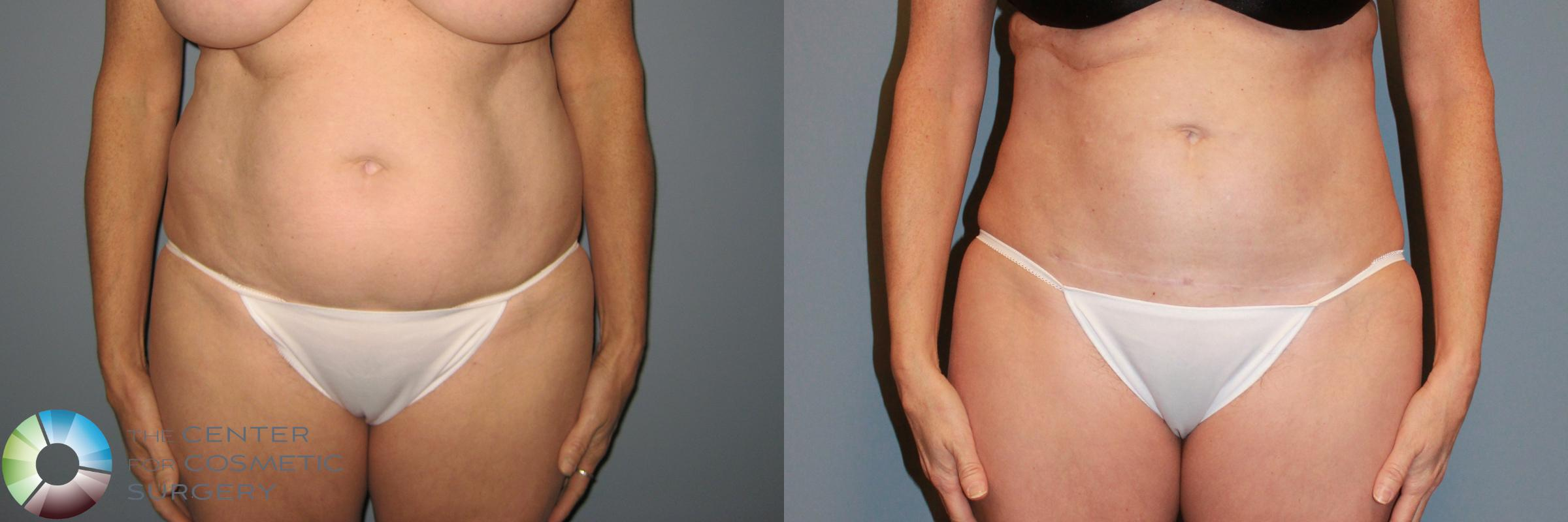 Power-assisted Liposuction Case 869 Before & After View #1 | Golden, CO | The Center for Cosmetic Surgery