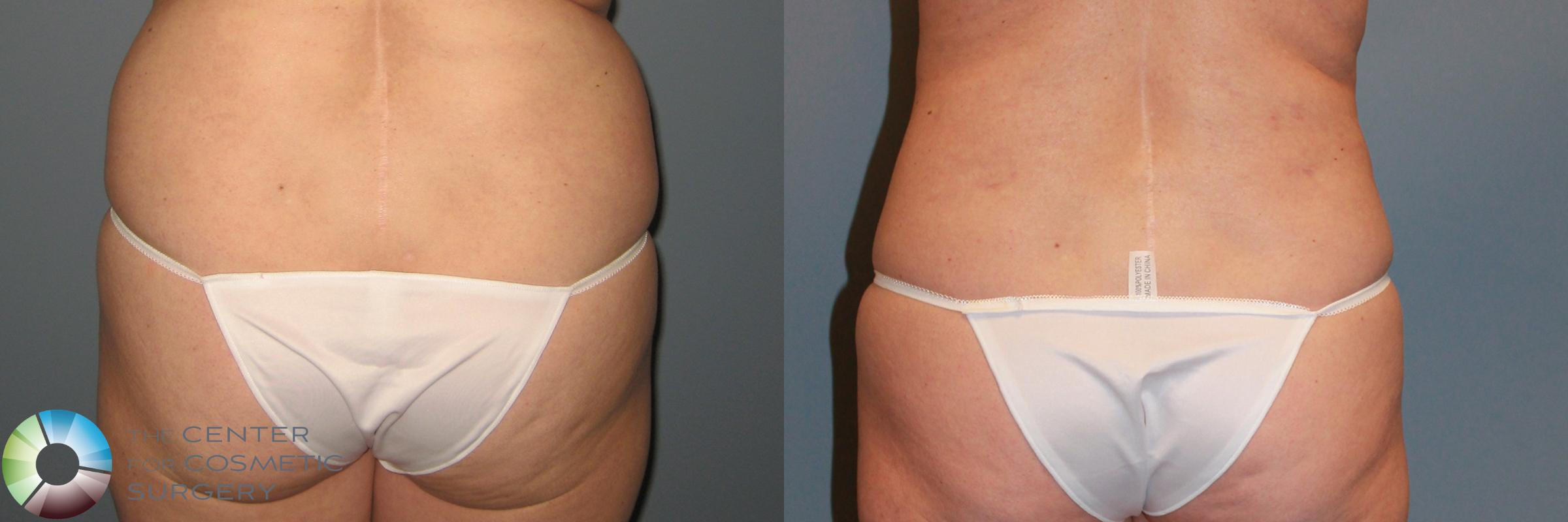 Power-assisted Liposuction Case 869 Before & After View #2 | Golden, CO | The Center for Cosmetic Surgery