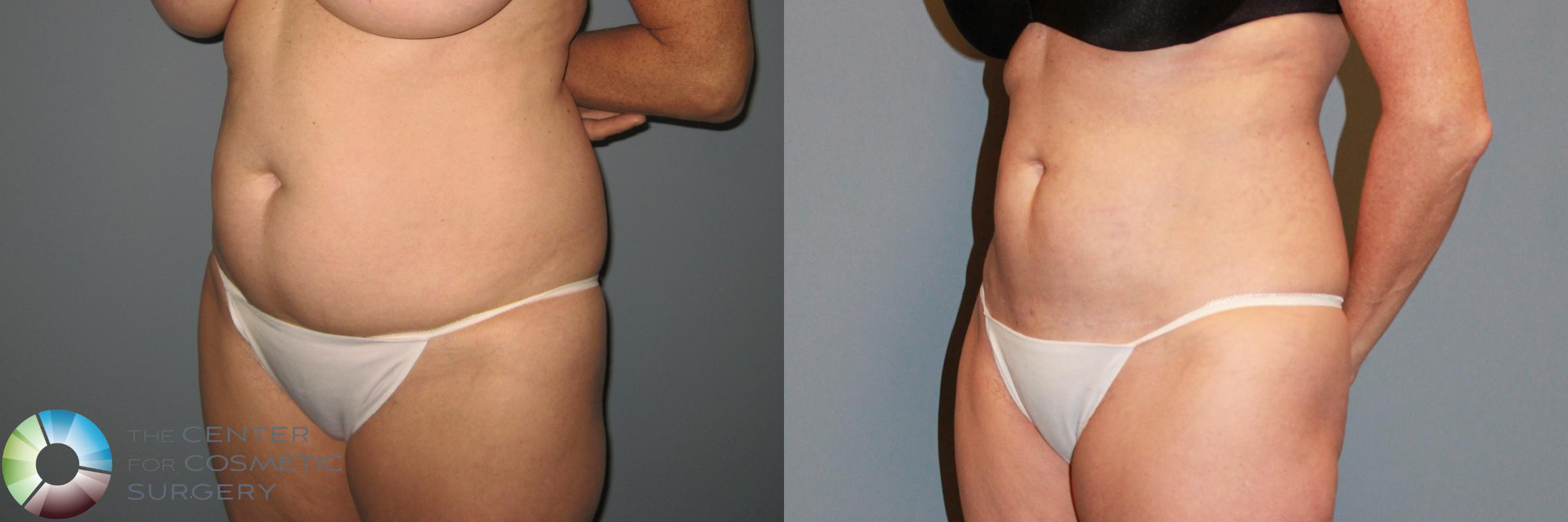 Power-assisted Liposuction Case 869 Before & After View #3 | Golden, CO | The Center for Cosmetic Surgery