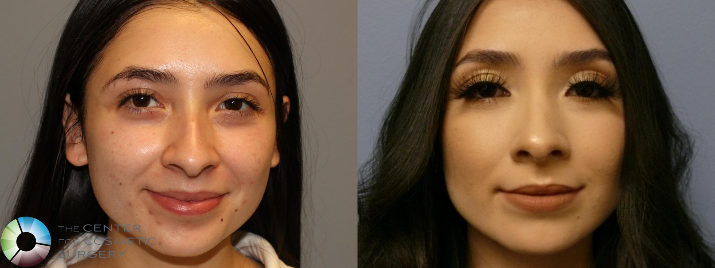Best Denver Rhinoplasty Nose