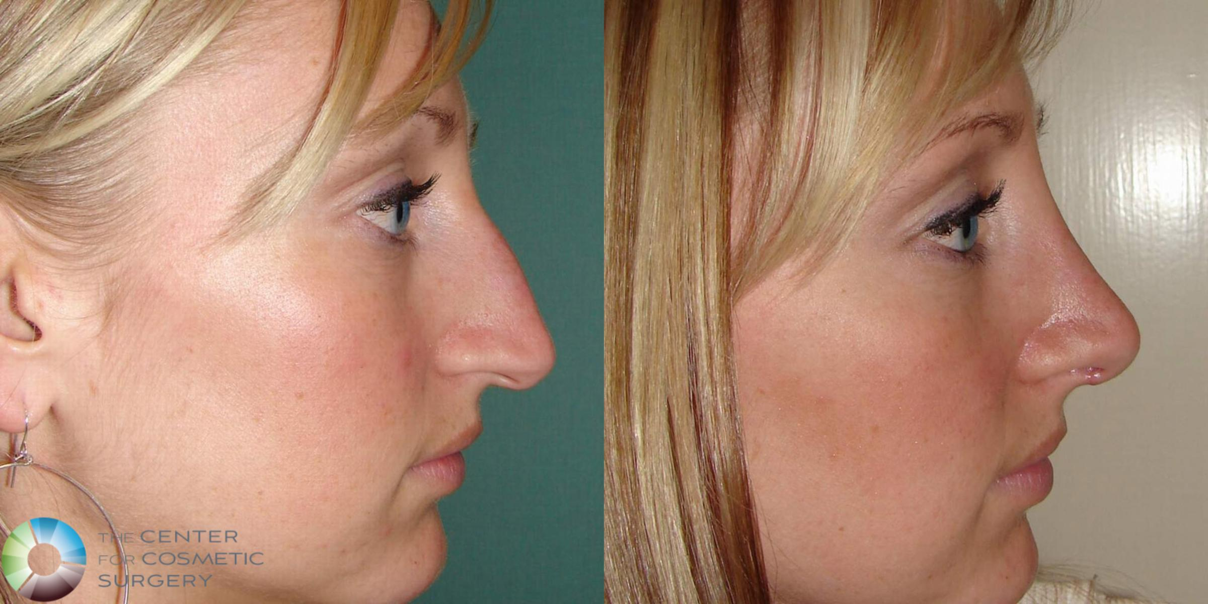 Rhinoplasty Case 501 Before & After View #1 | Golden, CO | The Center for Cosmetic Surgery