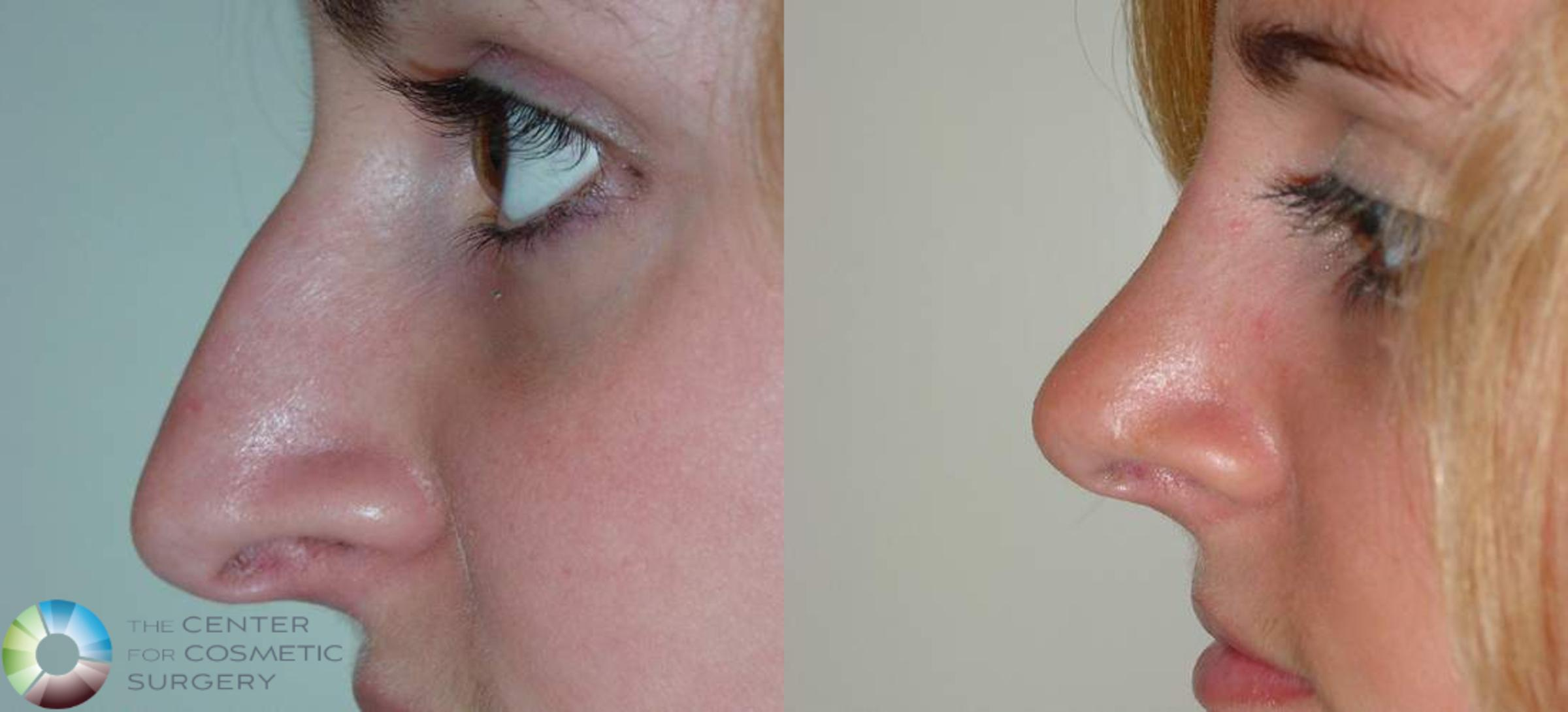 Rhinoplasty Case 570 Before & After View #1 | Golden, CO | The Center for Cosmetic Surgery
