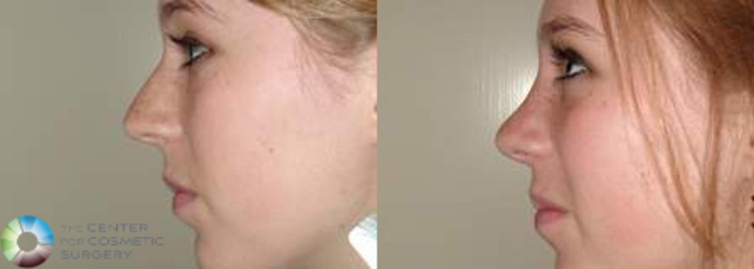 Rhinoplasty Case 572 Before & After View #1 | Golden, CO | The Center for Cosmetic Surgery